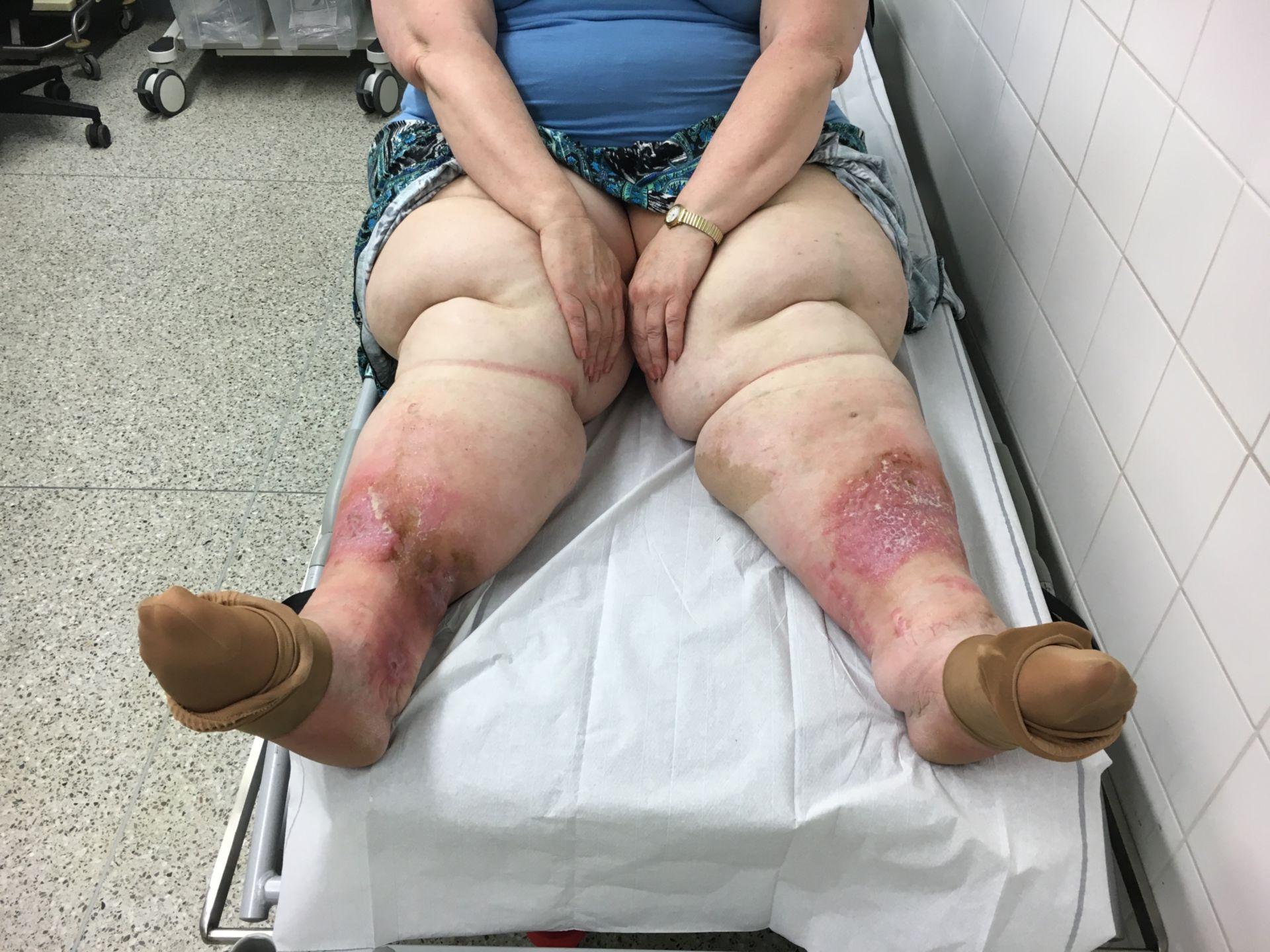 Adipöse Patientin mit einem Ulcus cruris der Unterschenkel beidseits