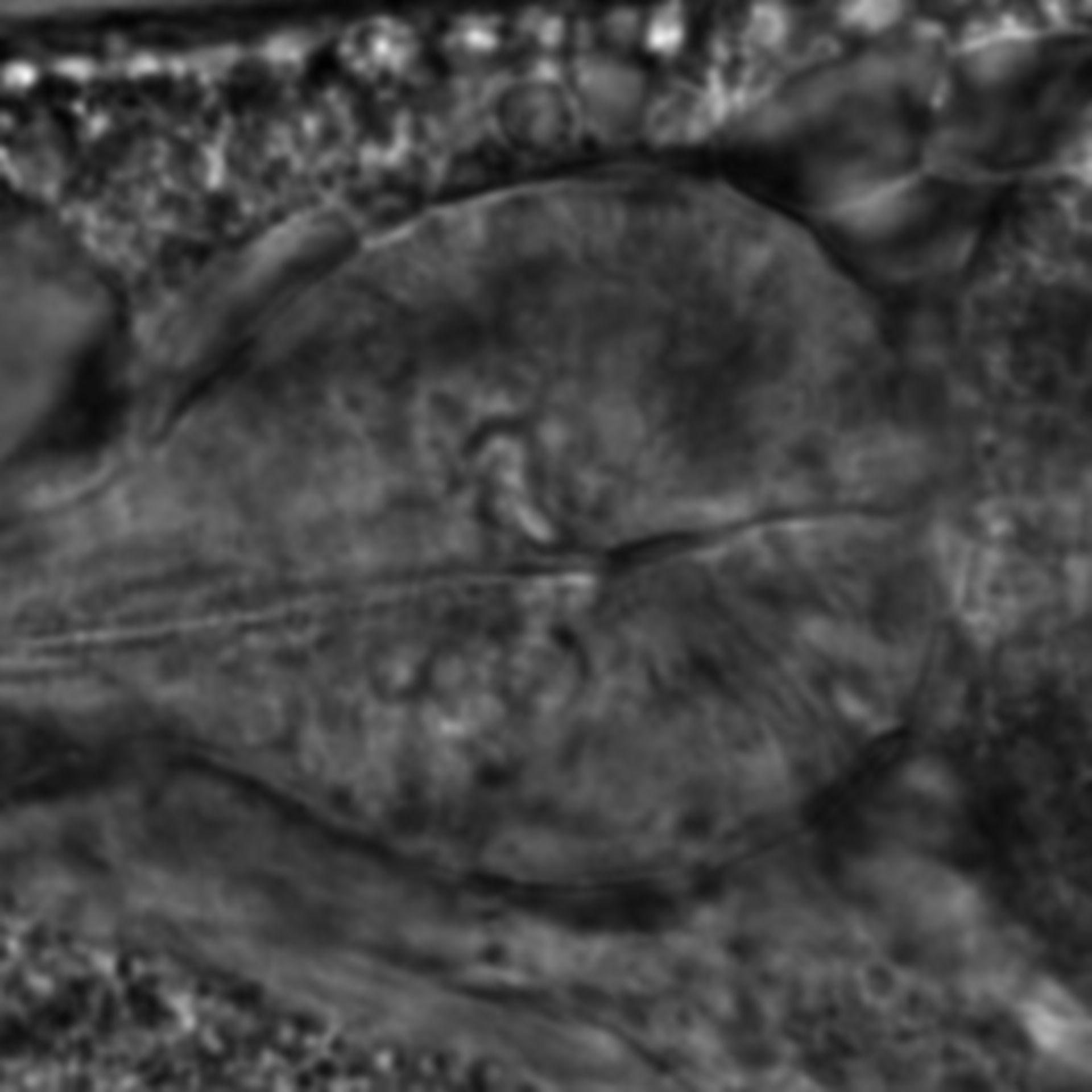 Caenorhabditis elegans - CIL:2157
