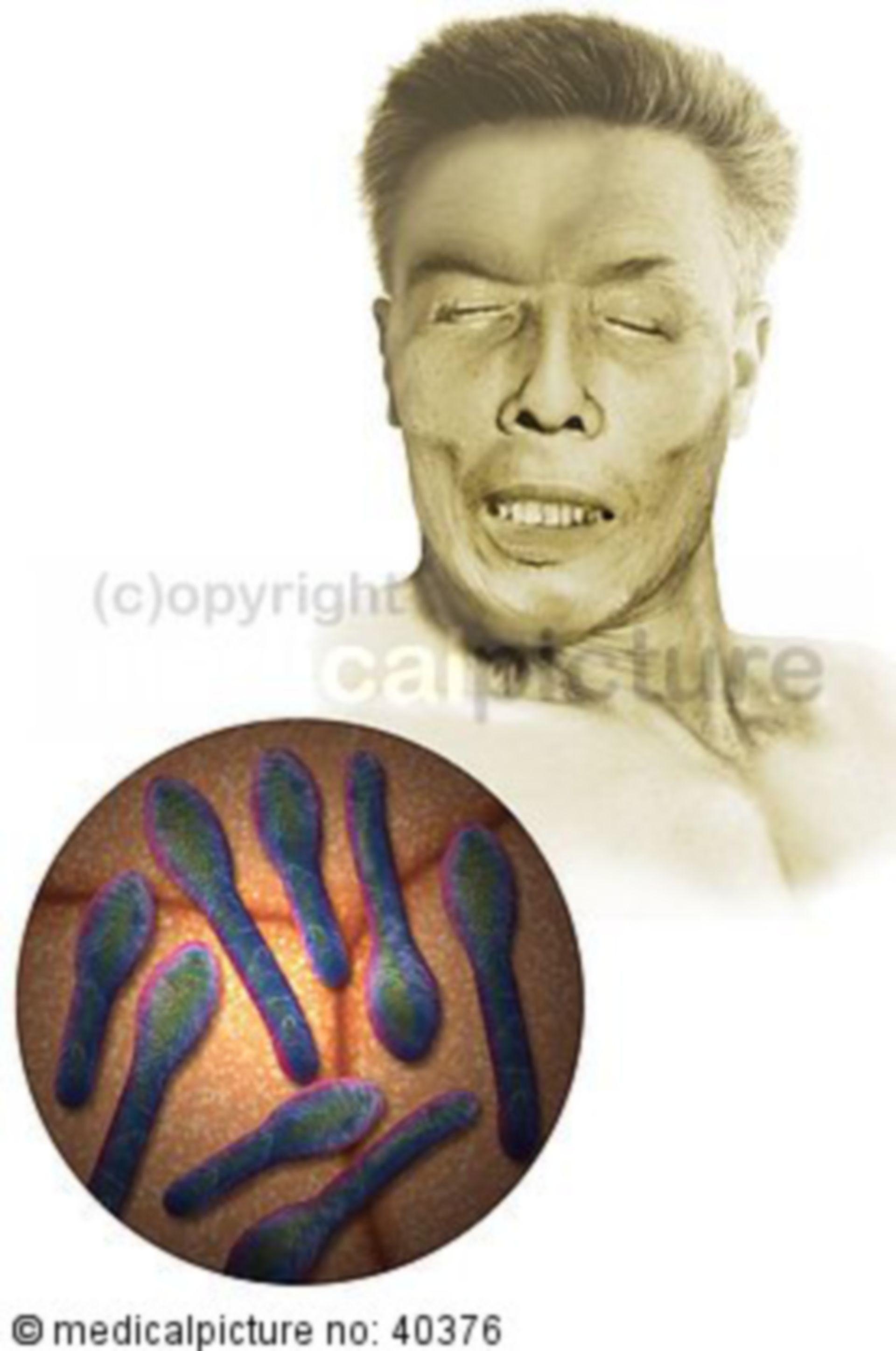 Clostridium tetani, Tetanus