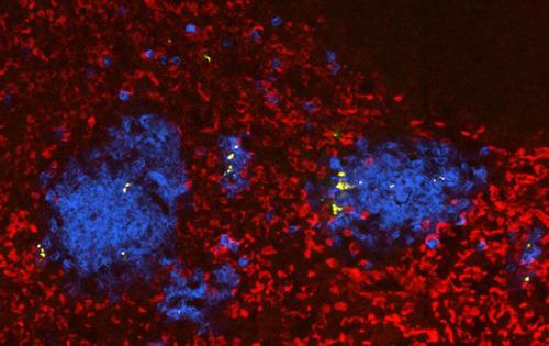 Schnitt durch eine mit Salmonellen (gelb) infizierte Milz (Rot: rote Blutkörperchen; Blau: Neutrophile). (Bild: Universität Basel, Biozentrum)