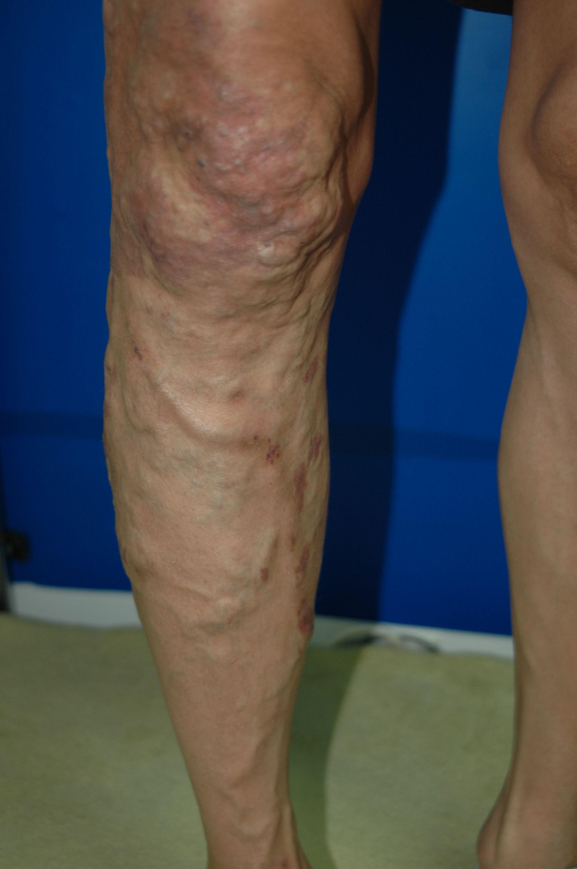 Klippel-Trénaunay-Syndrom postop. Aufnahme von Dr. Ykshim 3