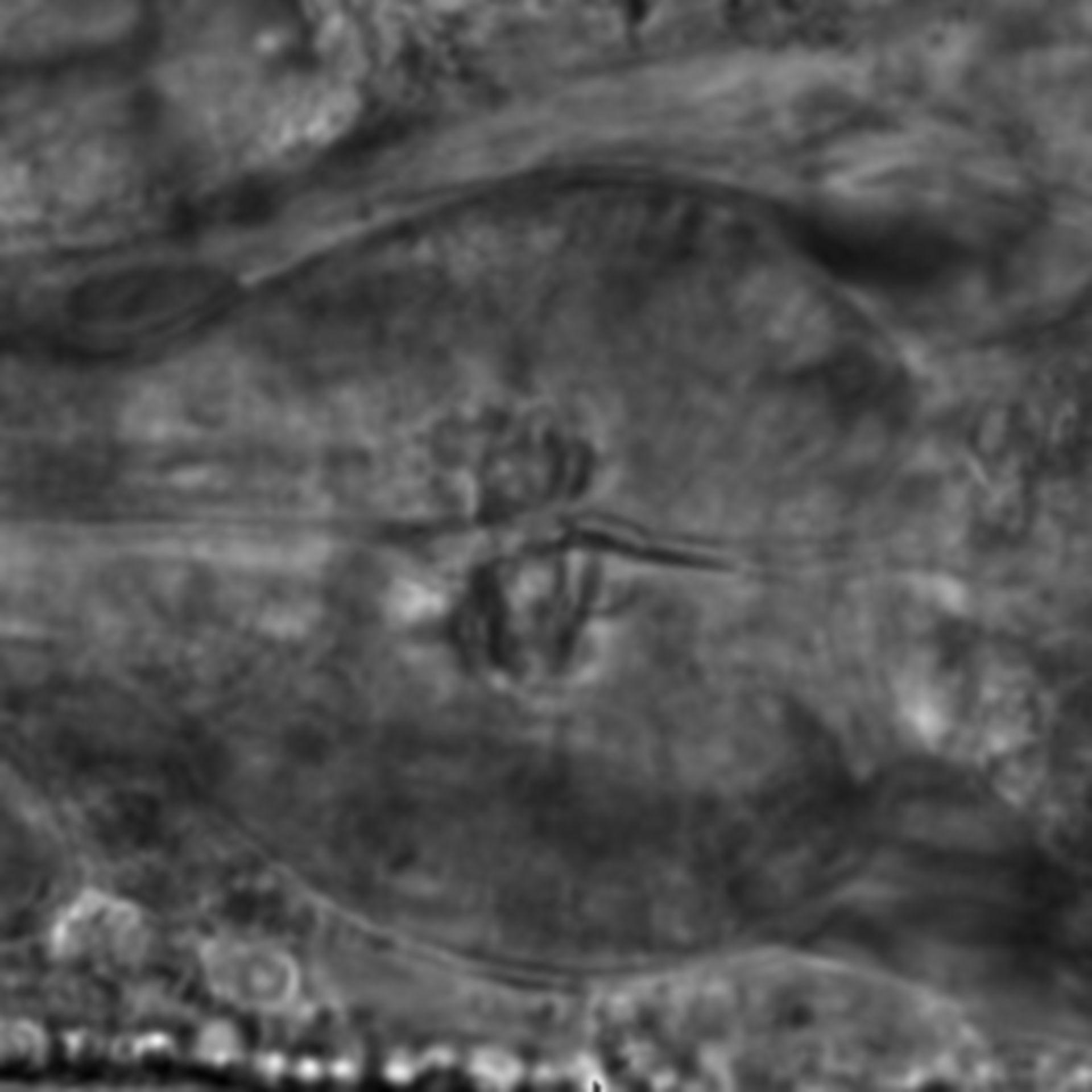 Caenorhabditis elegans - CIL:2149