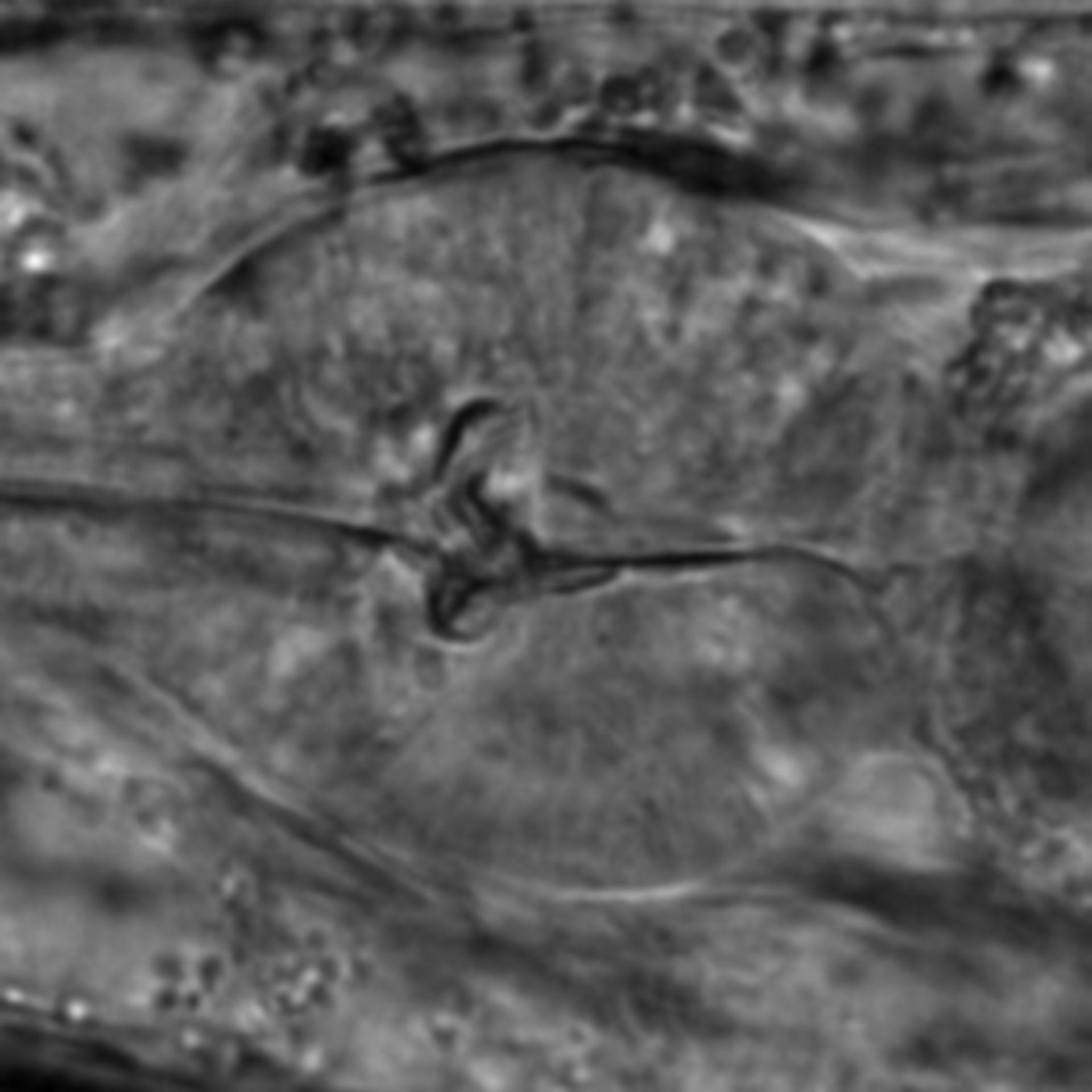 Caenorhabditis elegans - CIL:1756
