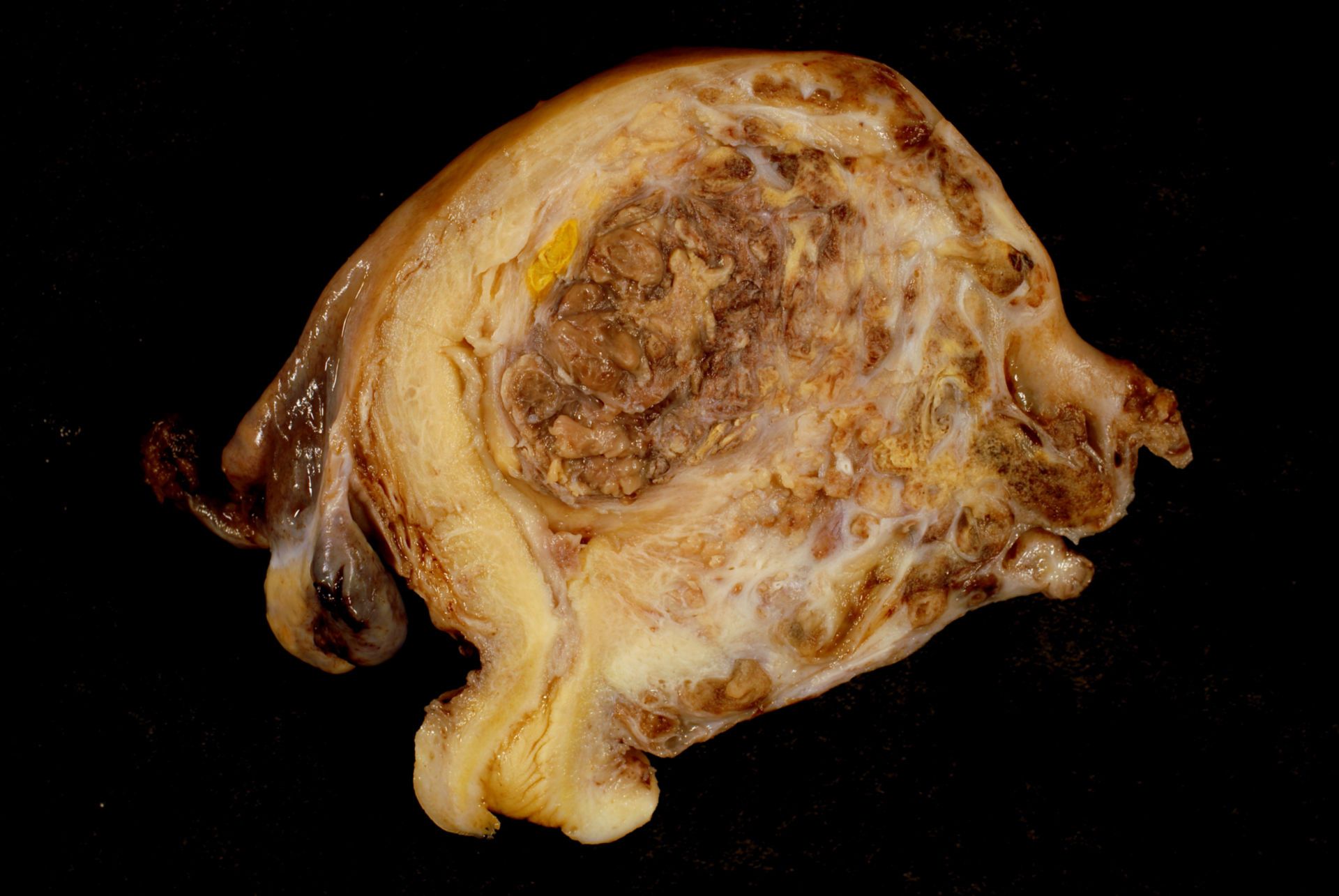 Uterine Tumor in a 33-Year-Old (1)