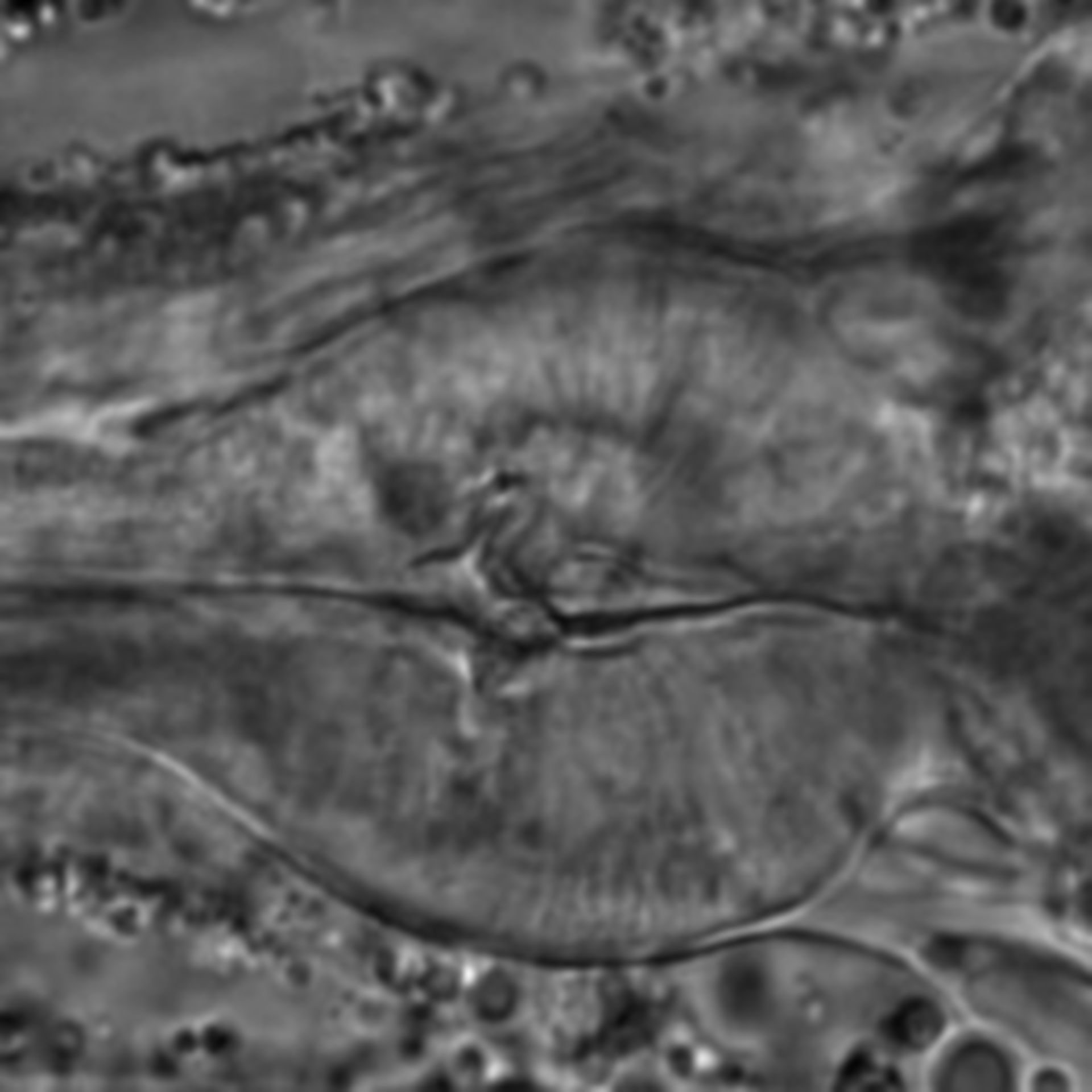 Caenorhabditis elegans - CIL:1725