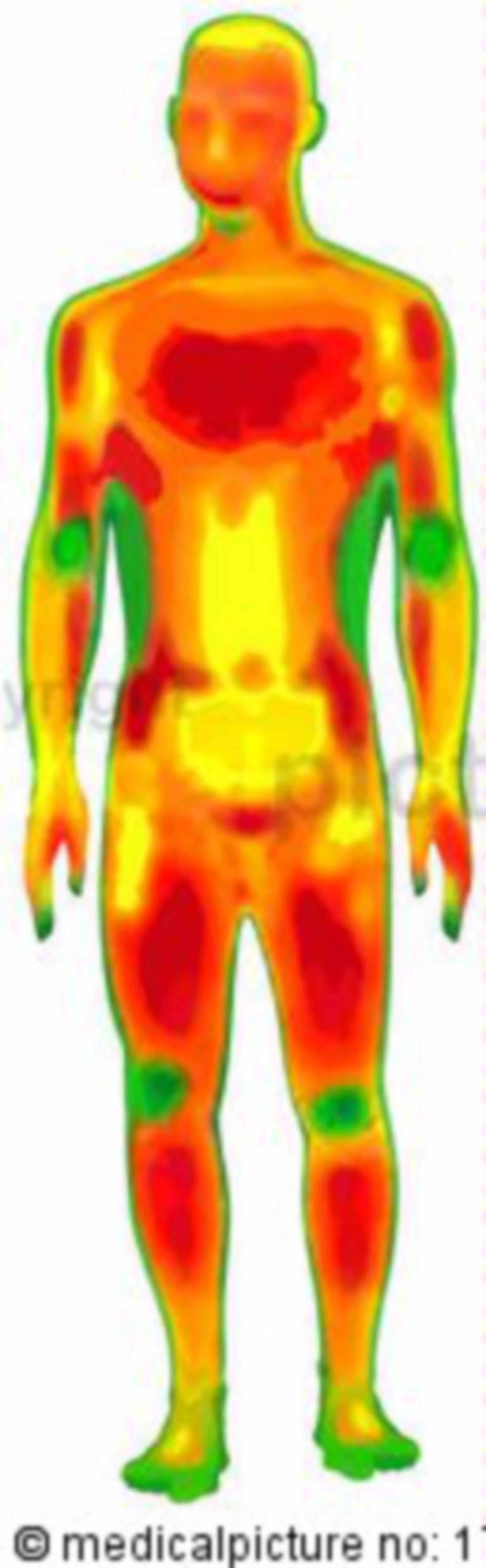 Thermographic illustration of a naked man