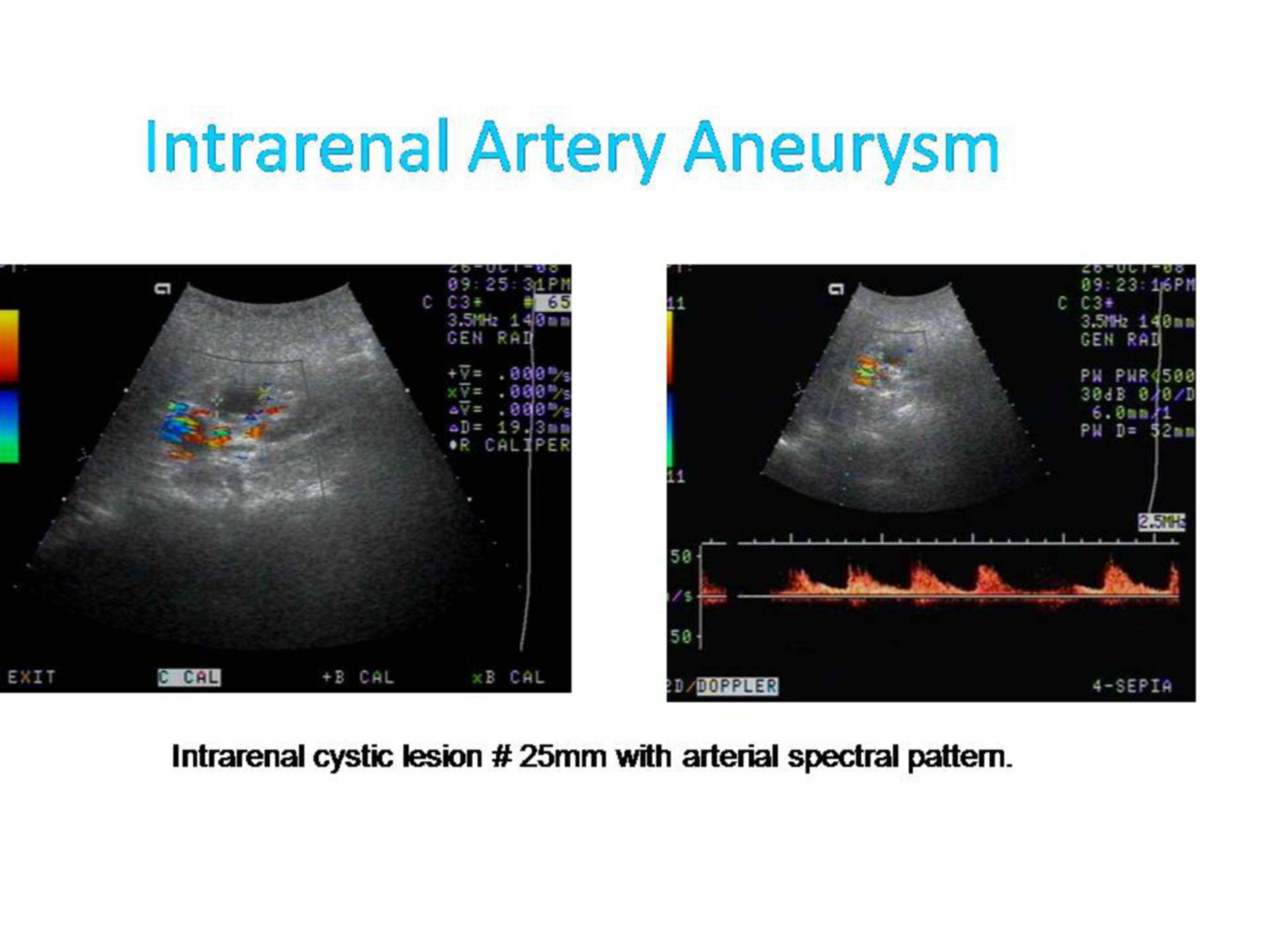 Intrarenales Arterienaneurysma (1)