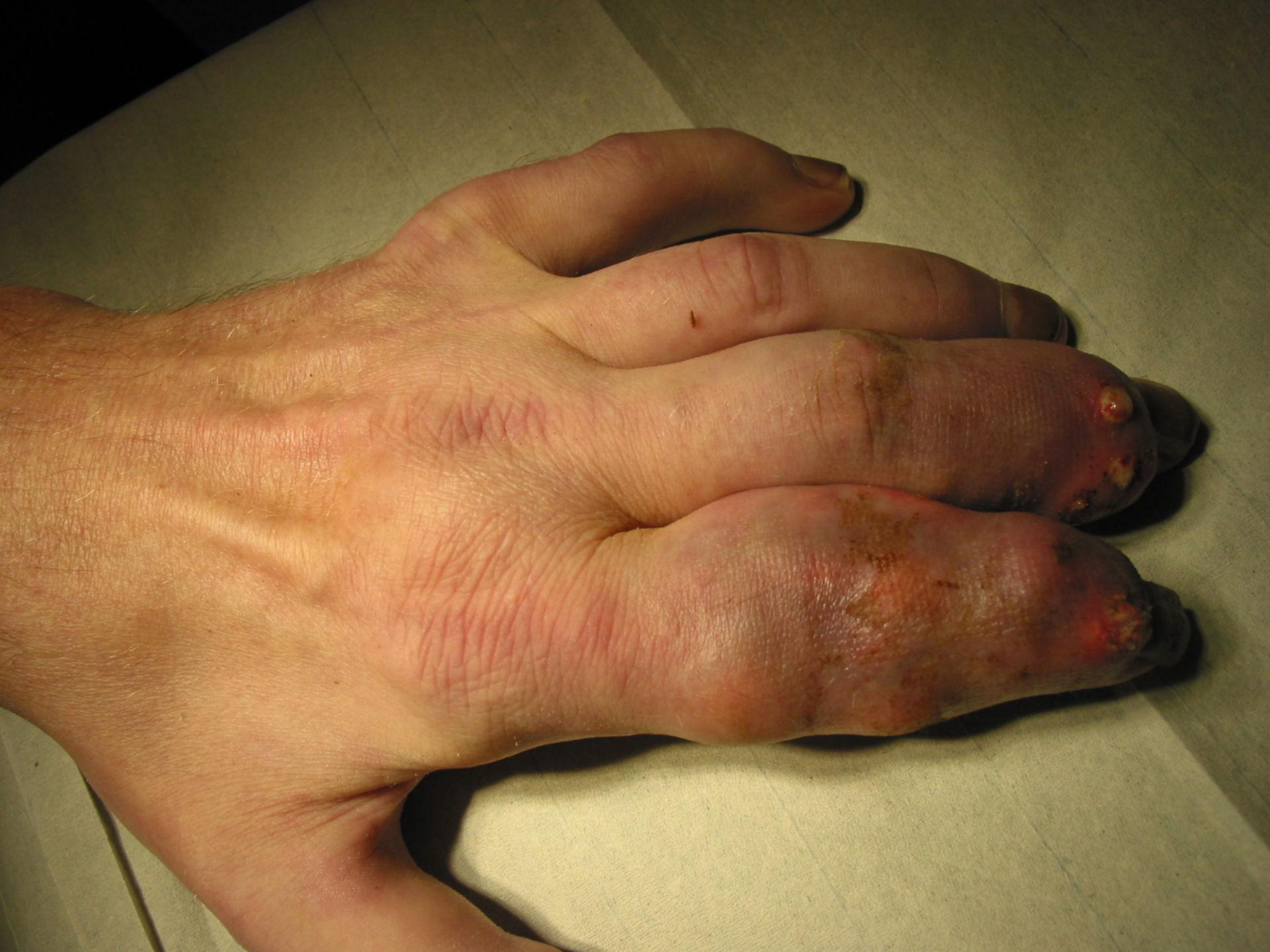Arthritis urica an D2 und D3
