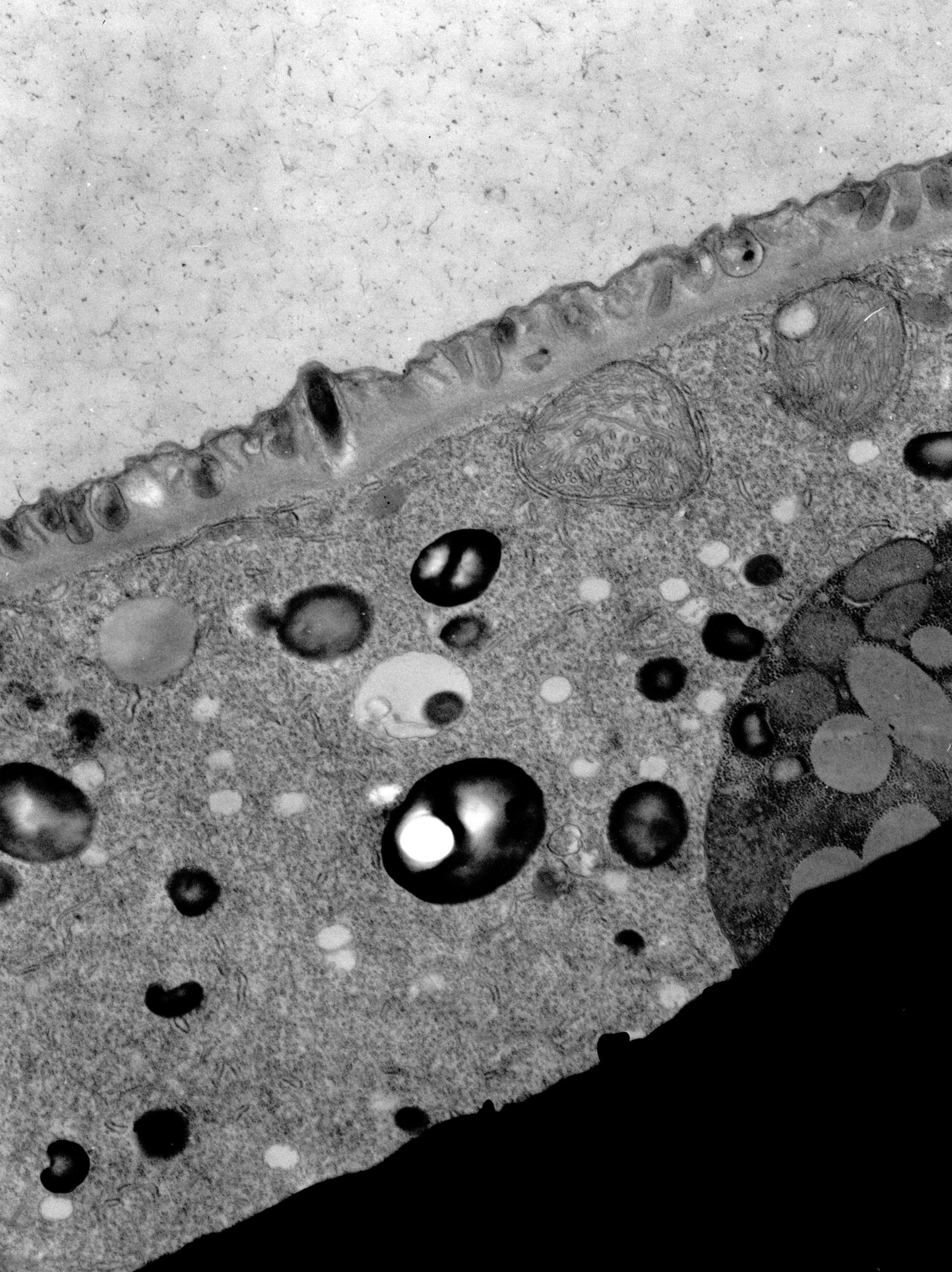 Paramecium sp. (Trichocisti) - CIL:15712
