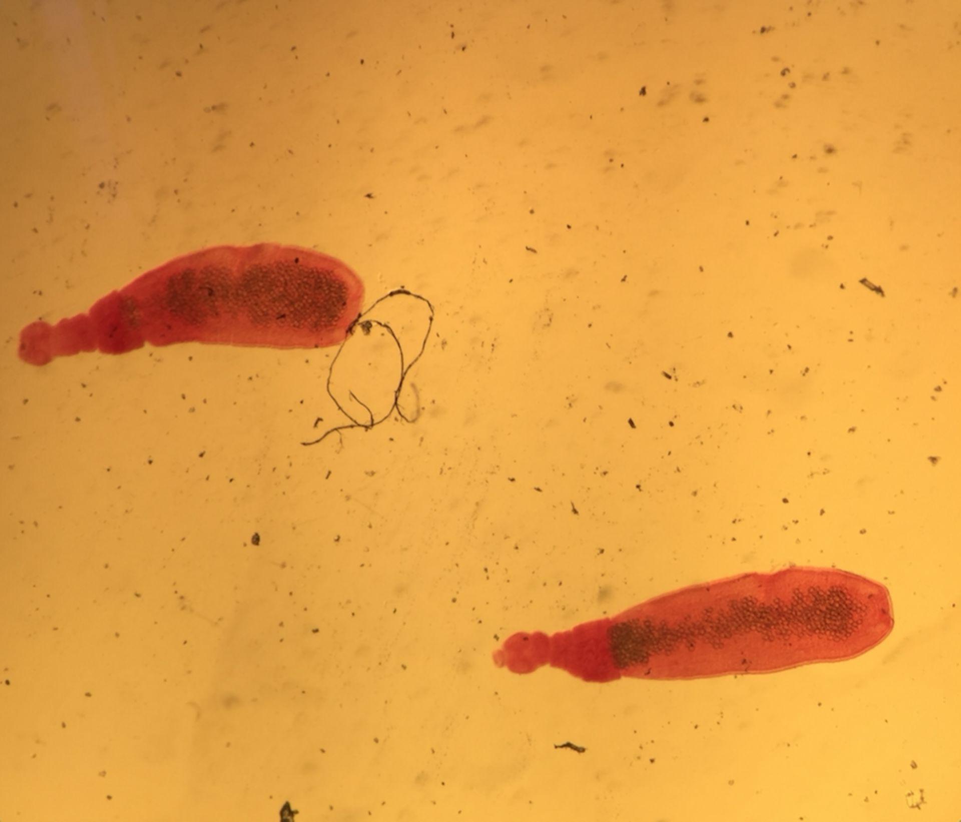 Echinococcus spp.