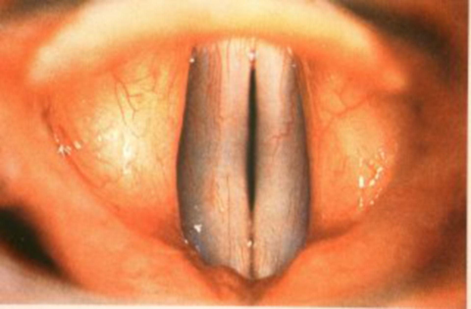 Normali reperti laringei