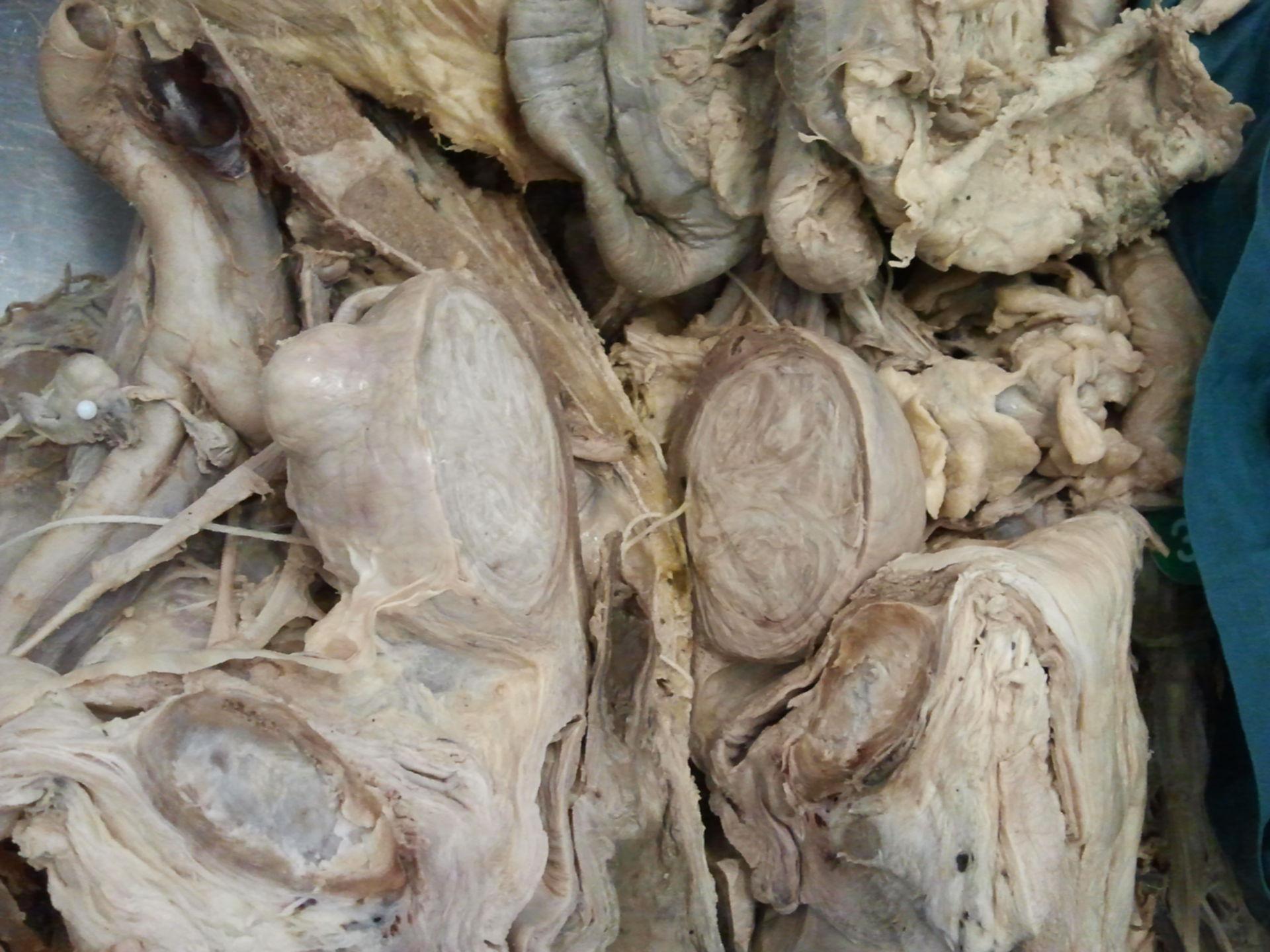 Uterus with abscess