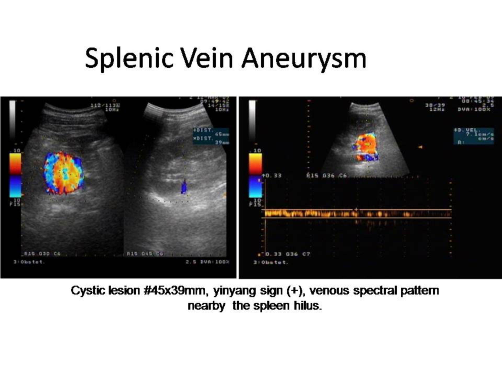 Aneurisma de la vena esplénica (1)