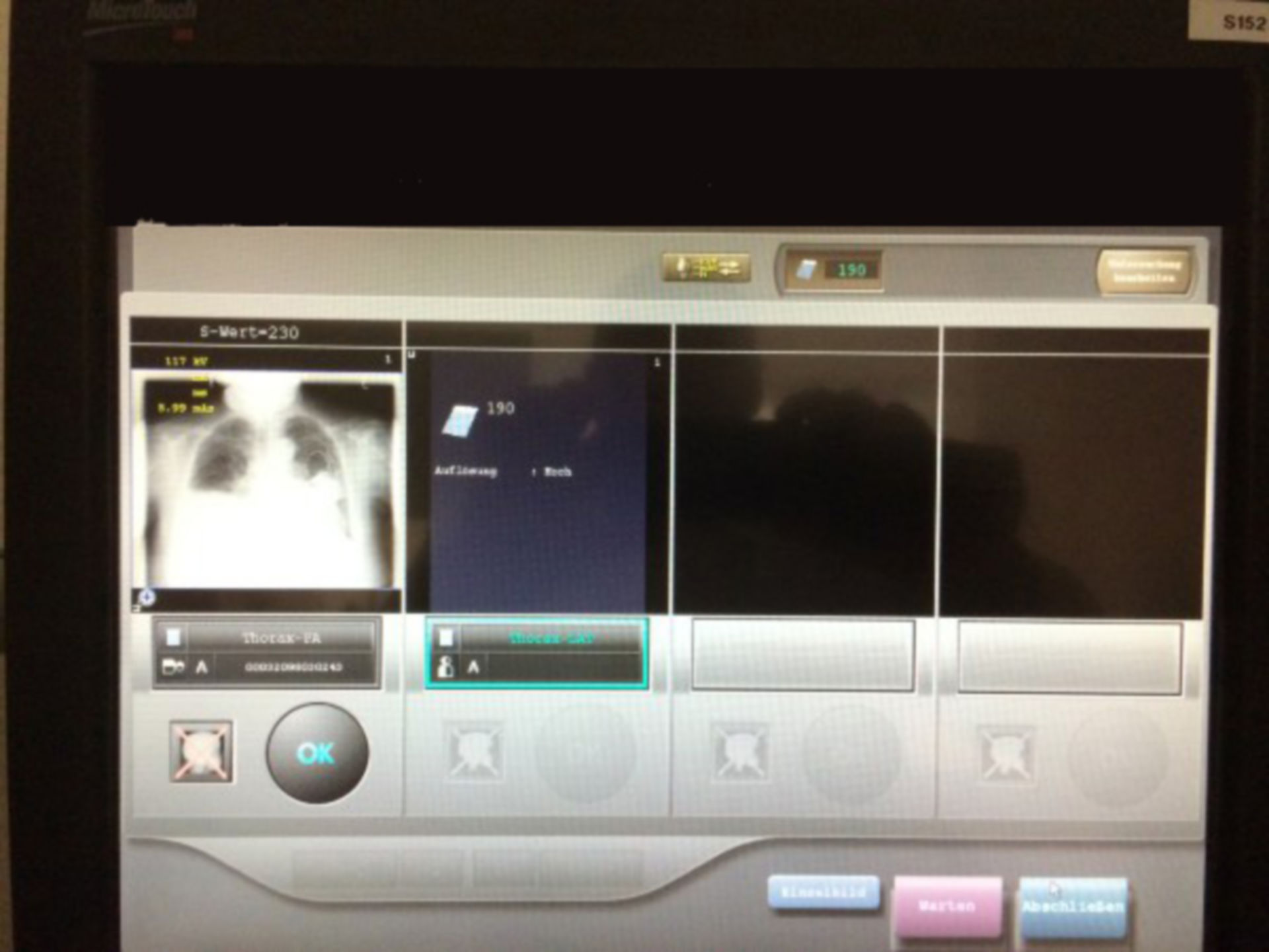 Radiologie Computer