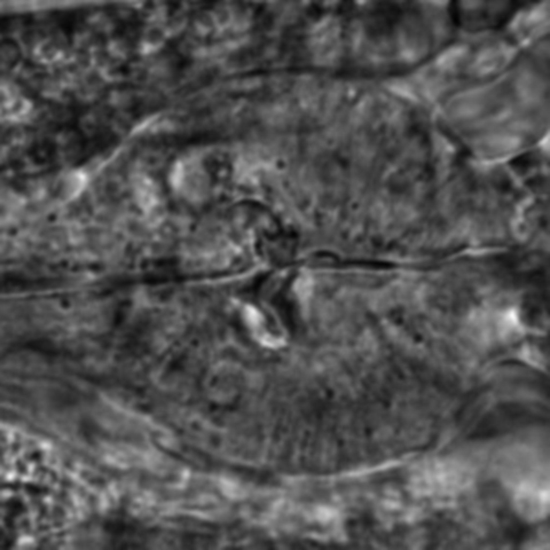 Caenorhabditis elegans - CIL:2011