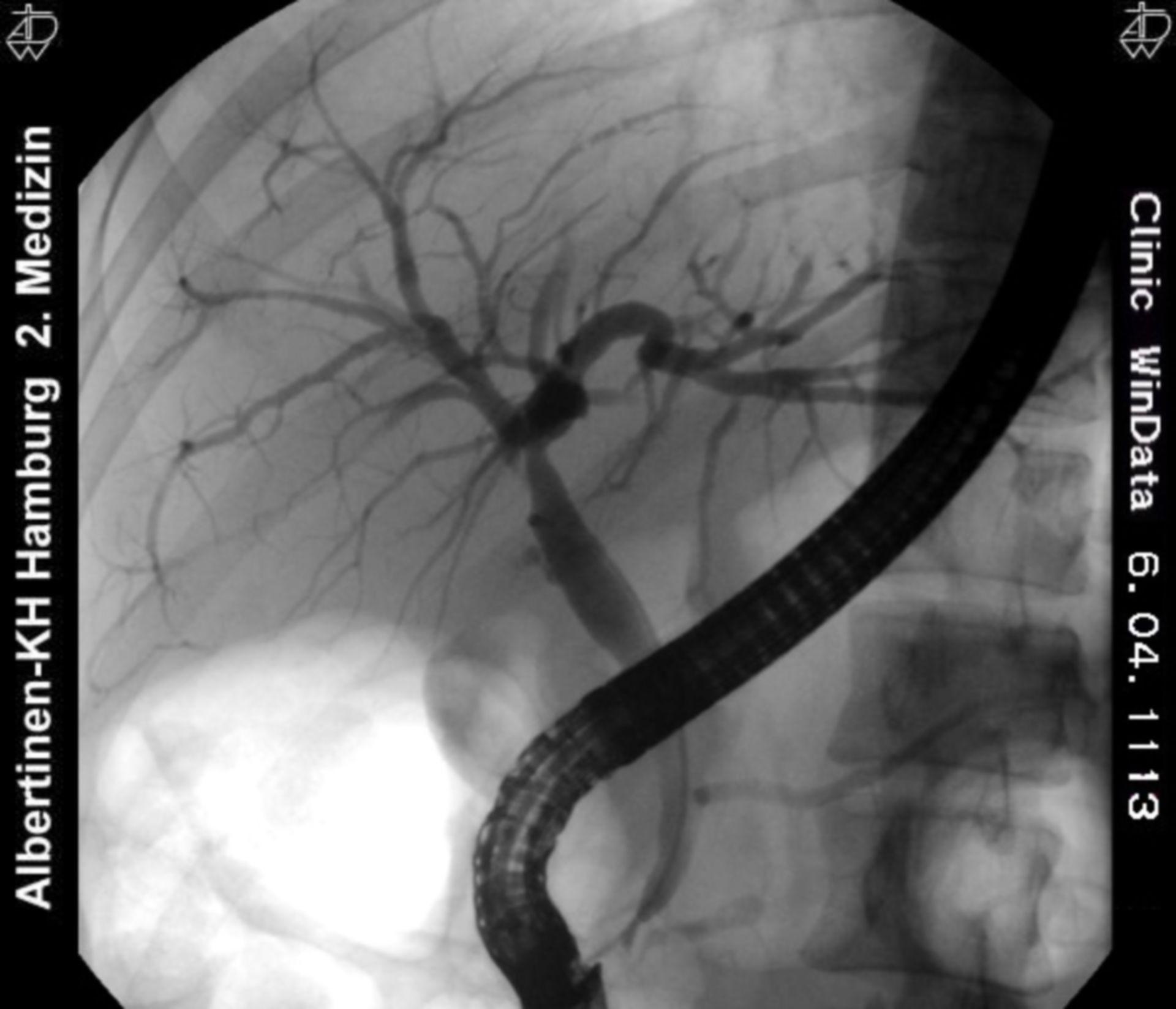 Albero biliare - normale - Periferia