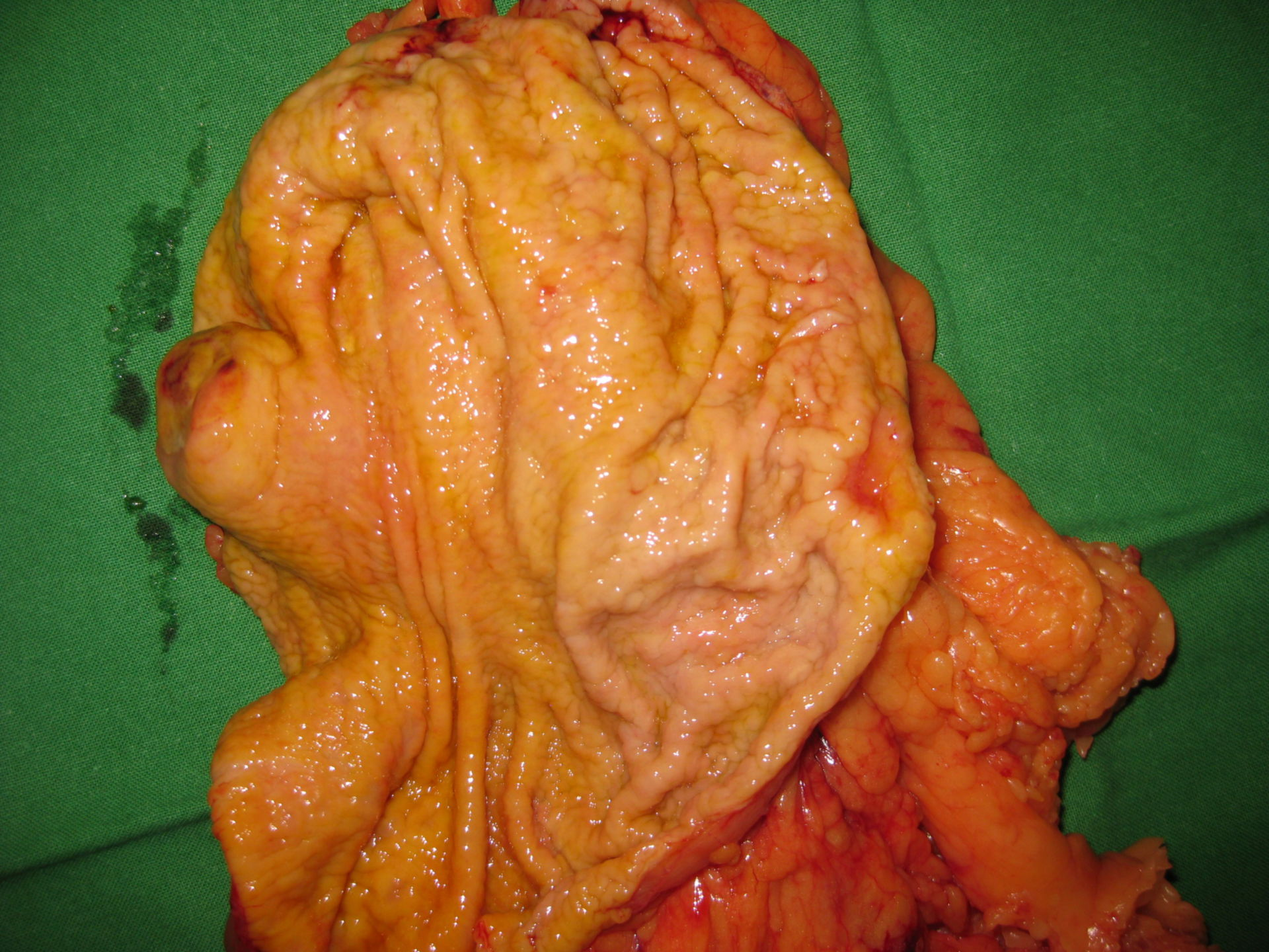 GIST and carcinoma (T2)