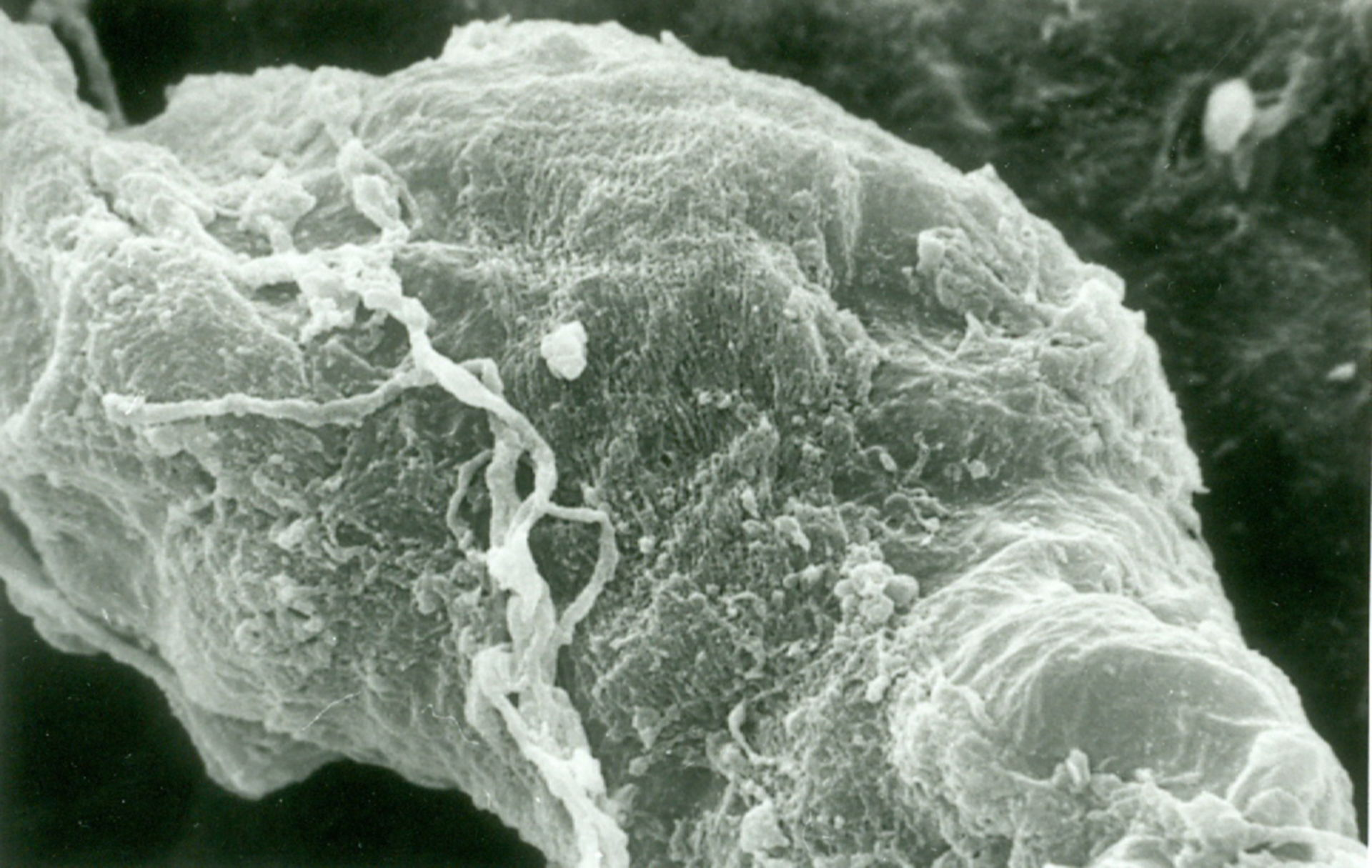 Arteriole der Meningen mit Nervenendung.