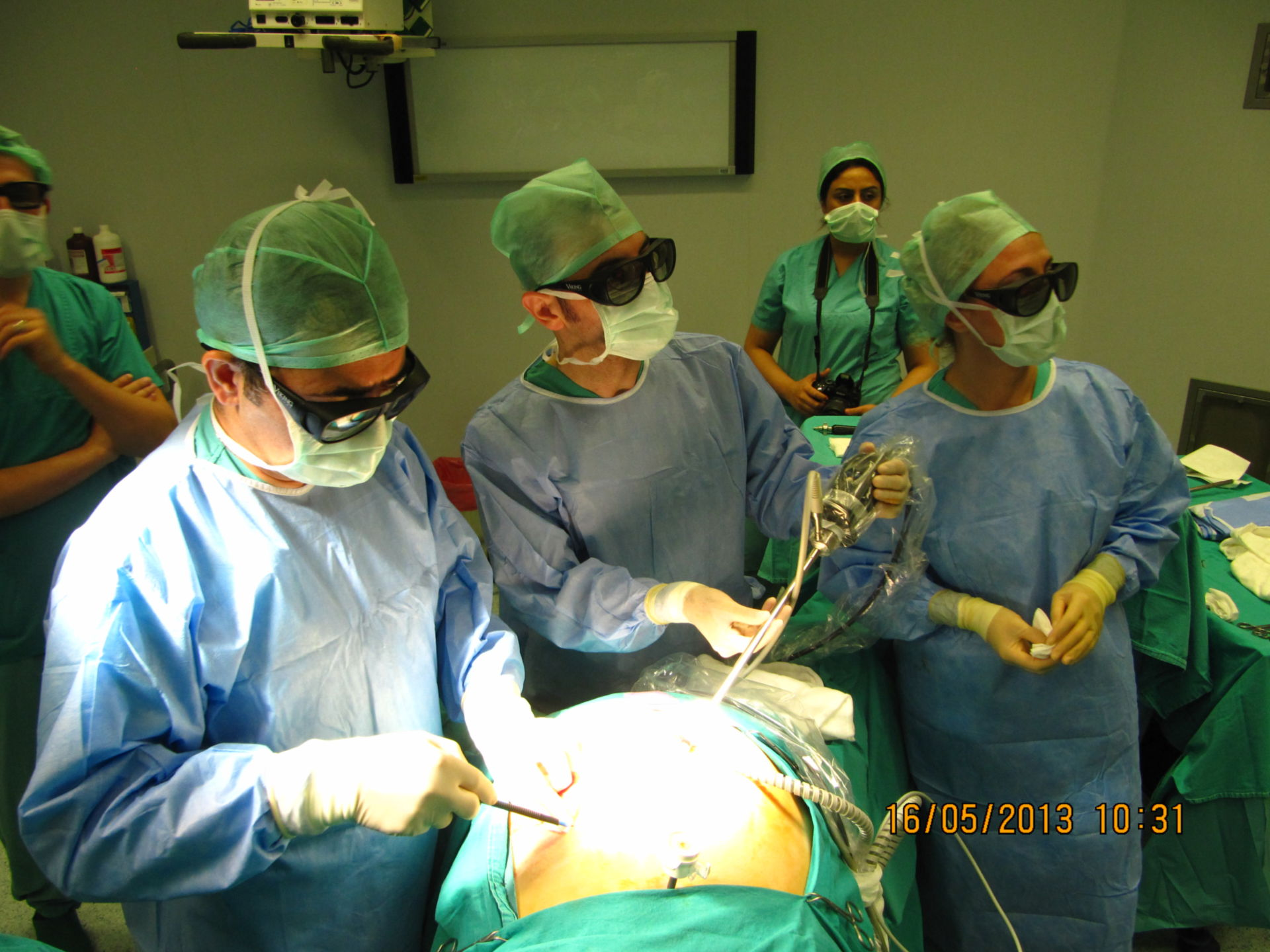 3D - Laparoskopische Sleeve-Gastrektomie