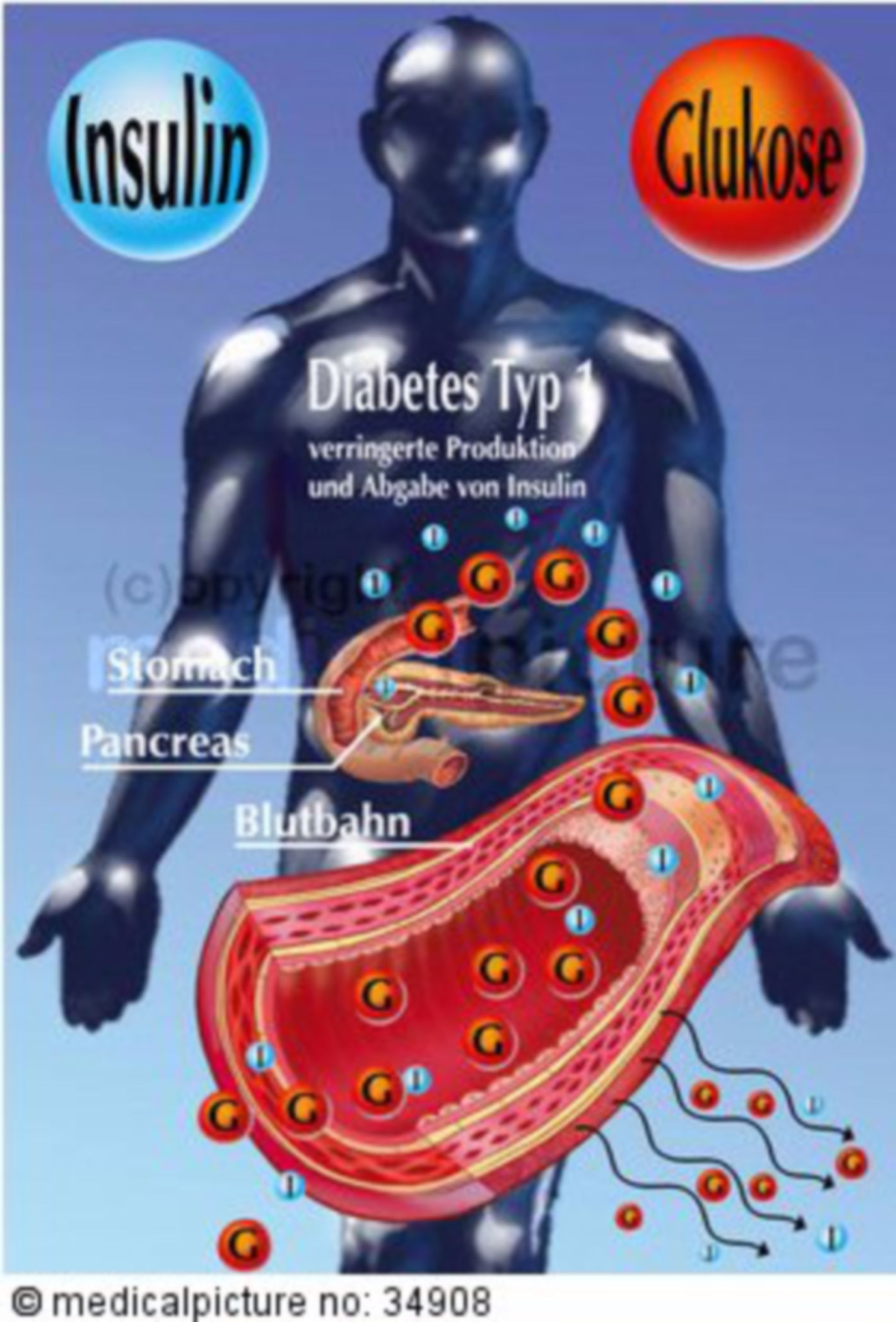 Insulin secretion of people with type I diabetes