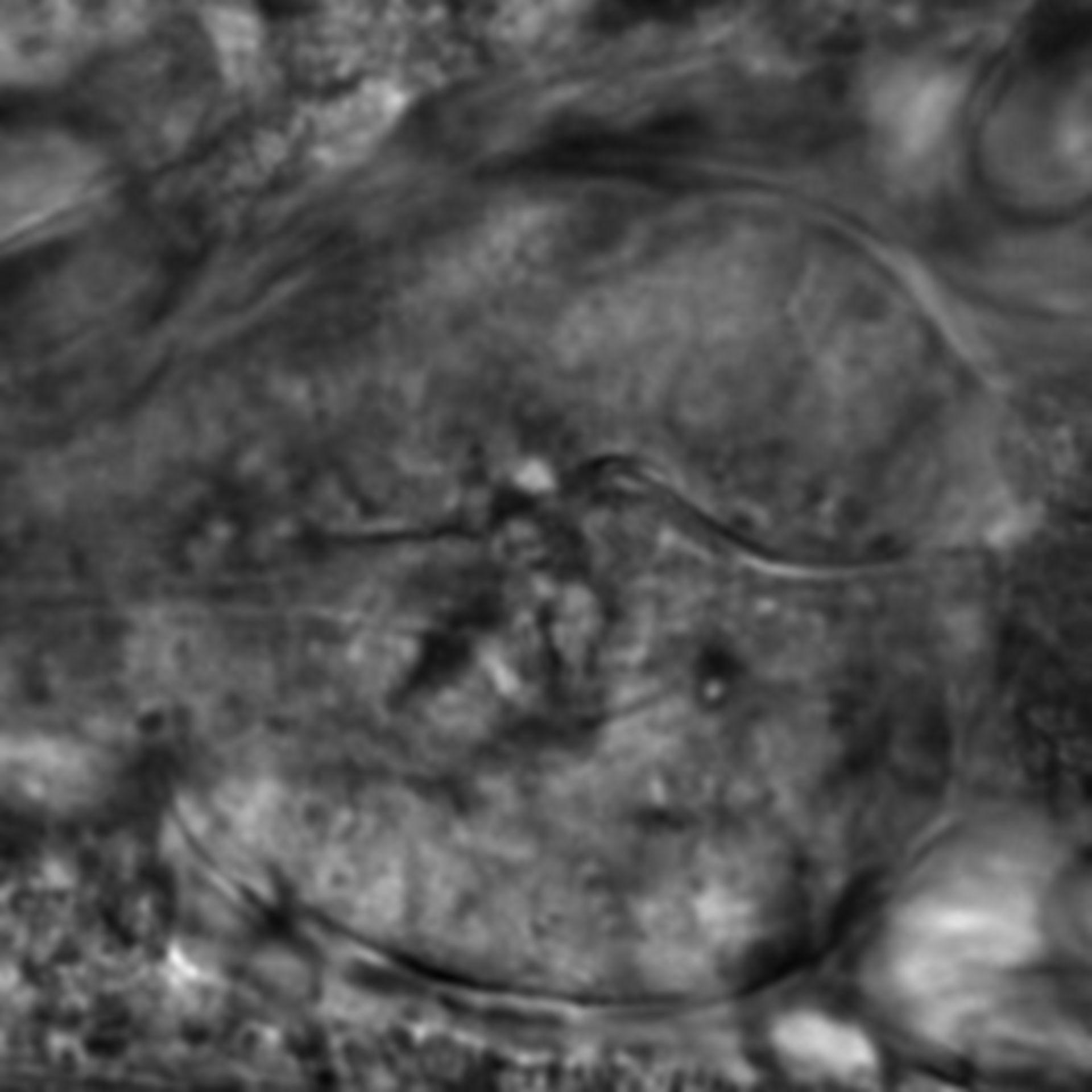 Caenorhabditis elegans - CIL:2706