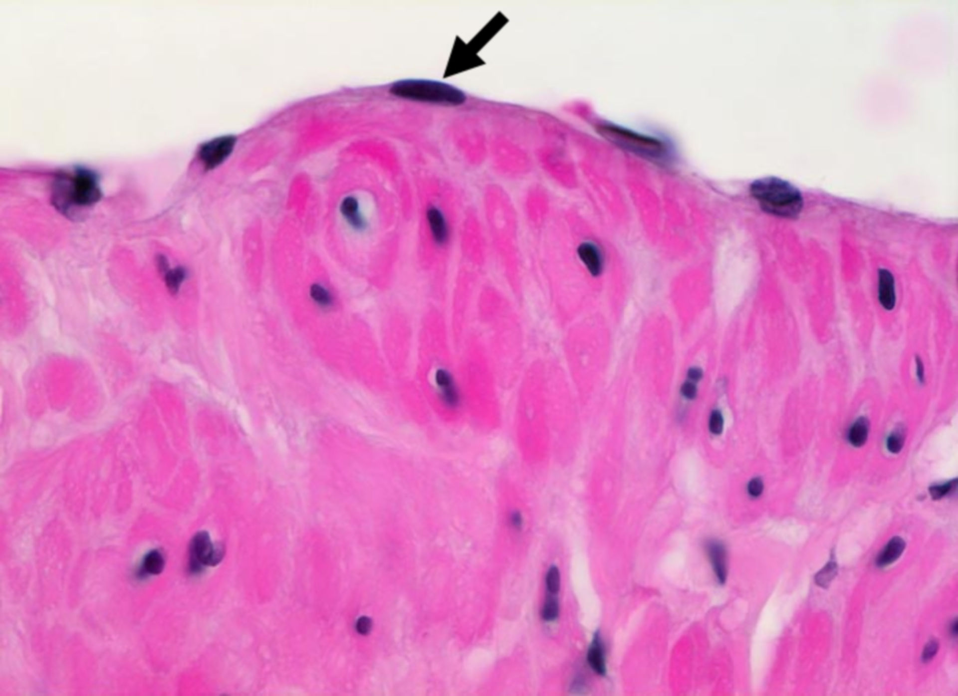 Endothelium of a normal venous wall (HE stain)