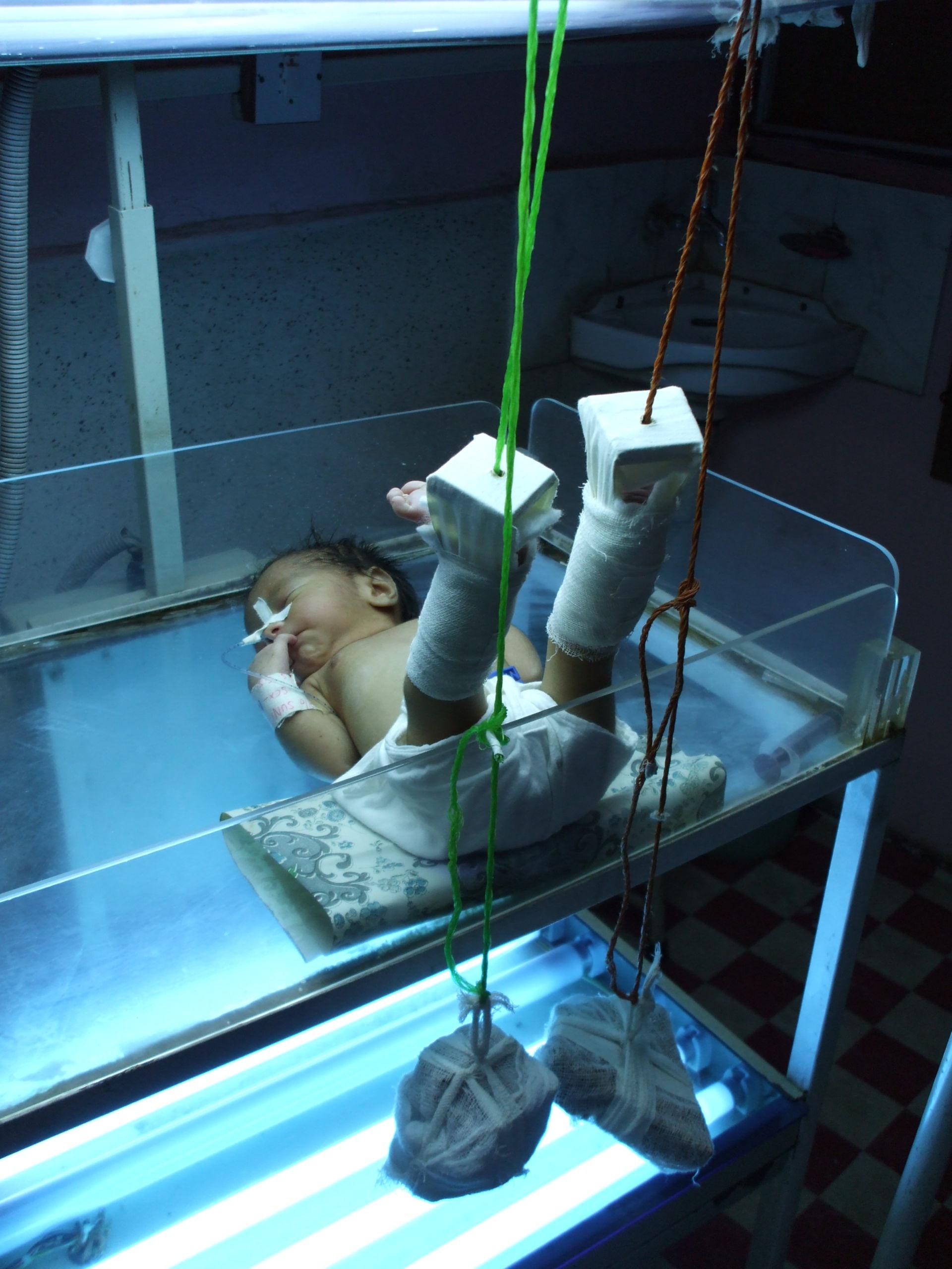 Hüftdysplasiebehandlung mal anders