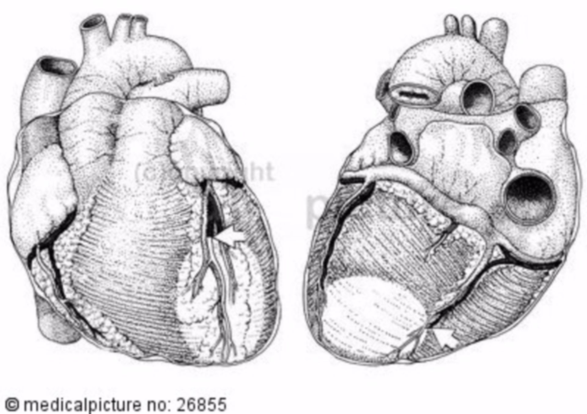 Heart, anatomical structure