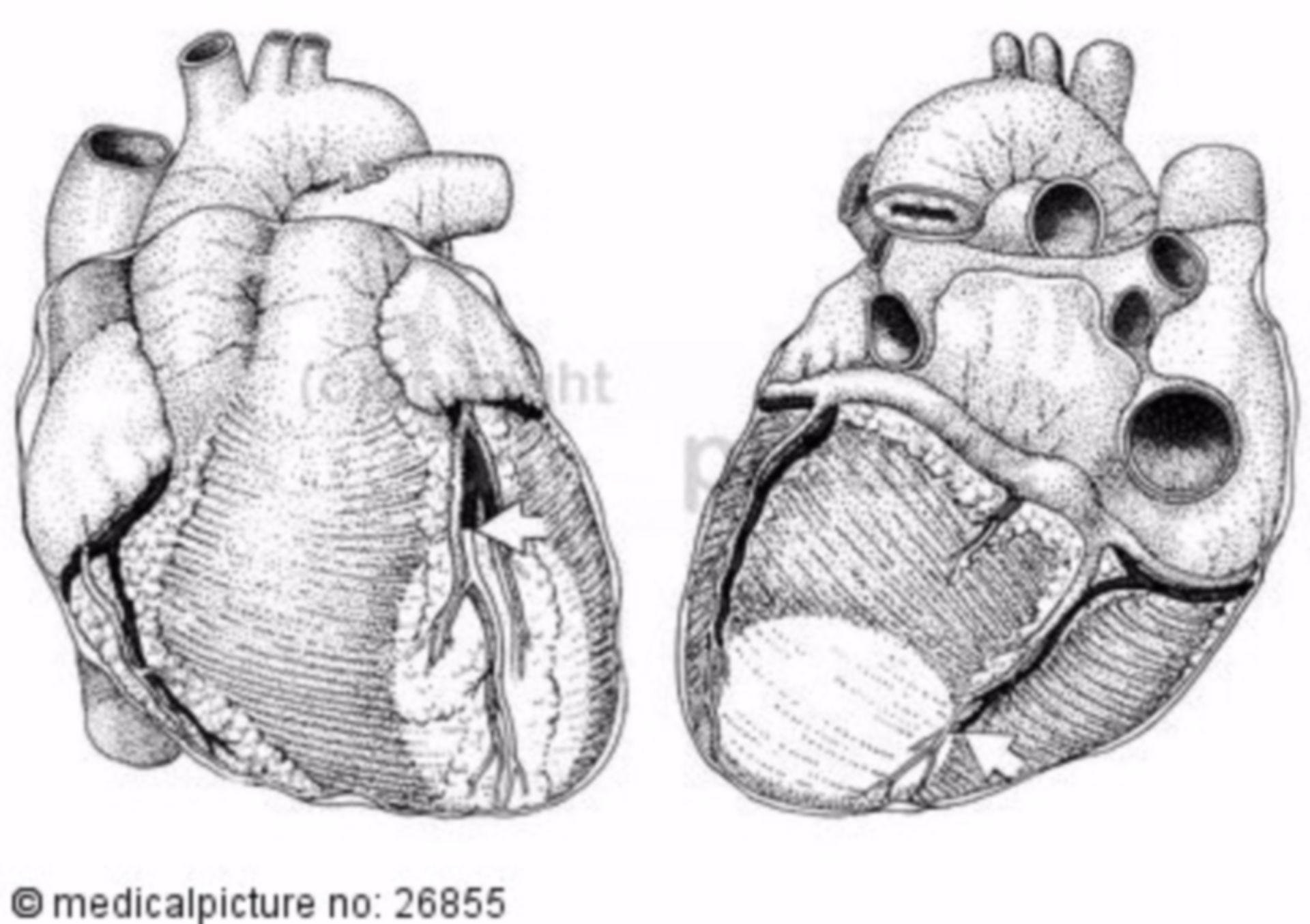 Herz, anatomischer Aufbau