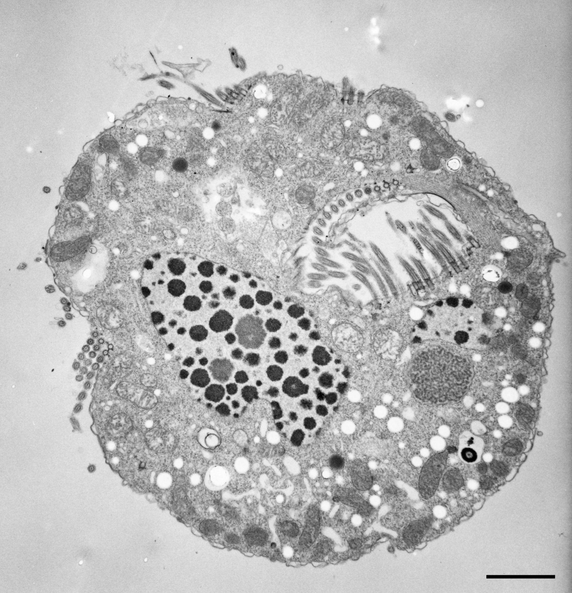 Halteria grandinella (vacuolo) - CIL:12321