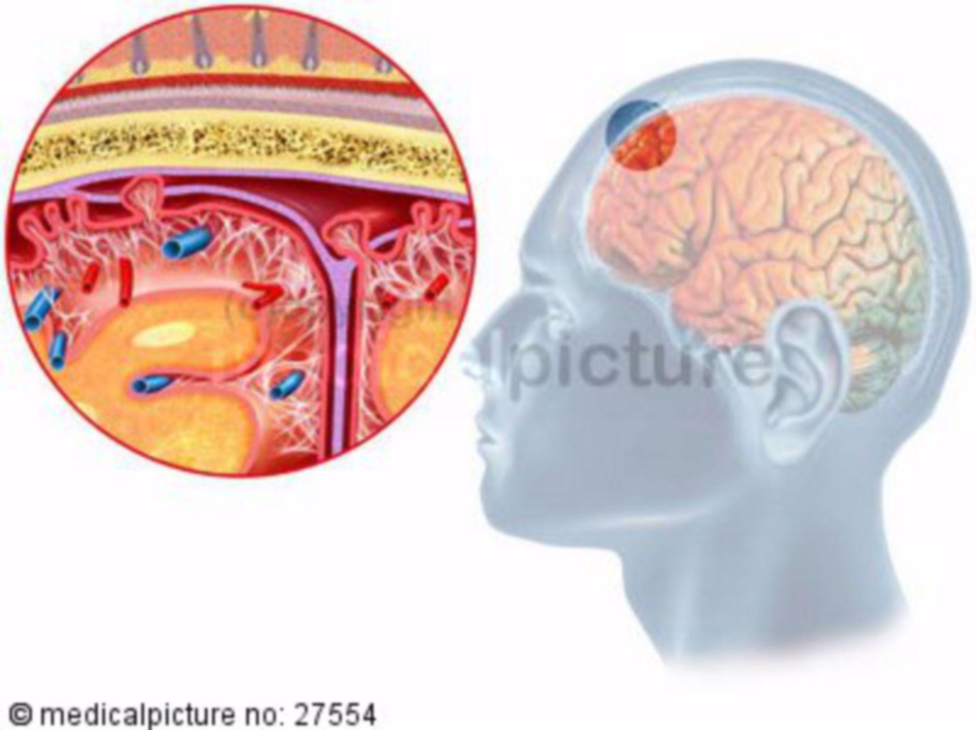 Hirnhautentzündung, Meningitis