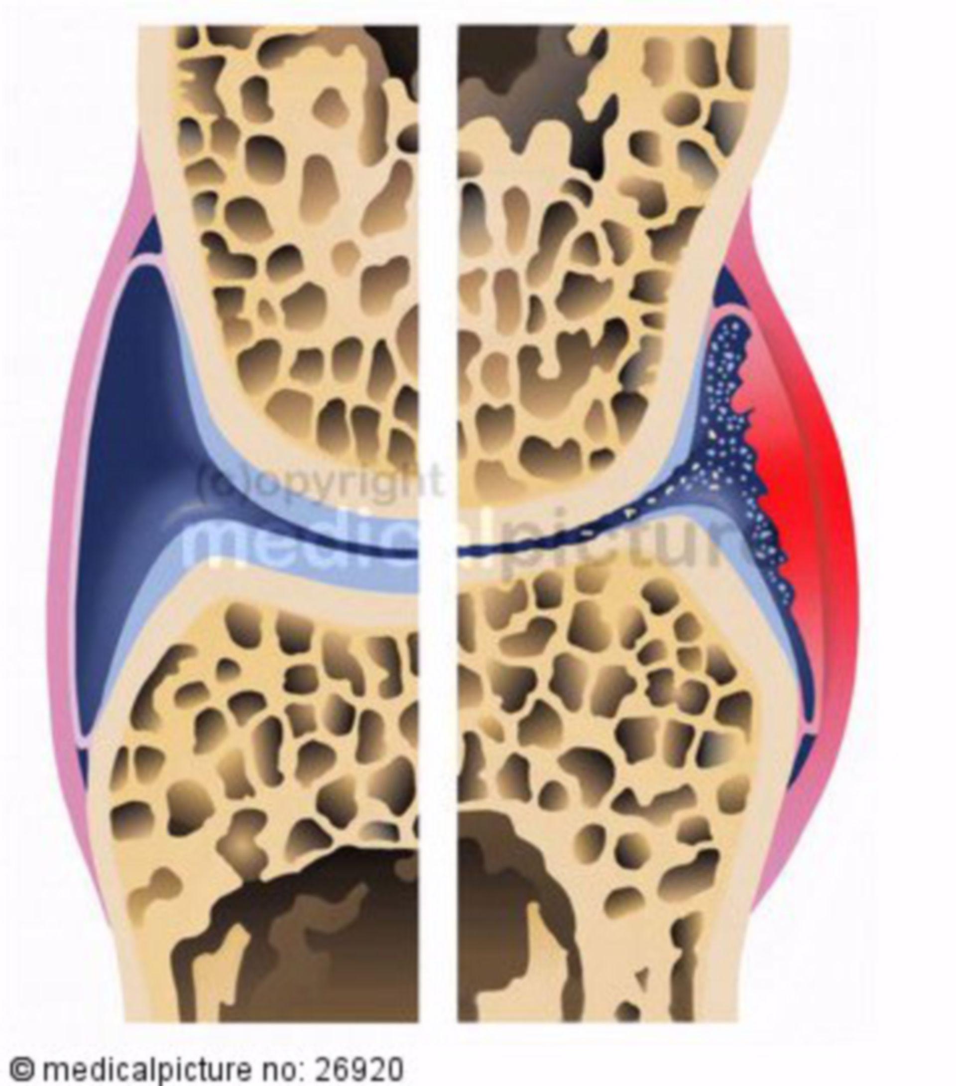 Degenerative Gelenkerkrankung, Arthritis deformans