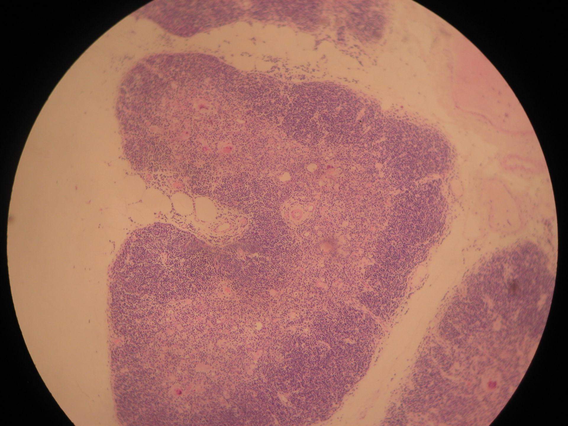 Thymus gland of a sheep 4 - lobule