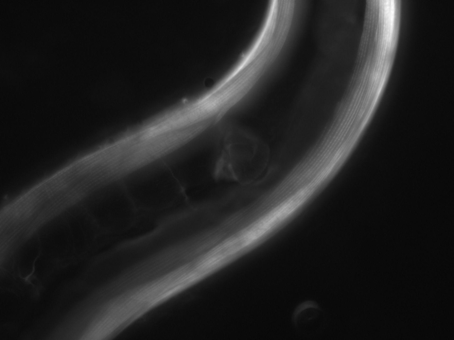 Caenorhabditis elegans (Actin filament) - CIL:1077