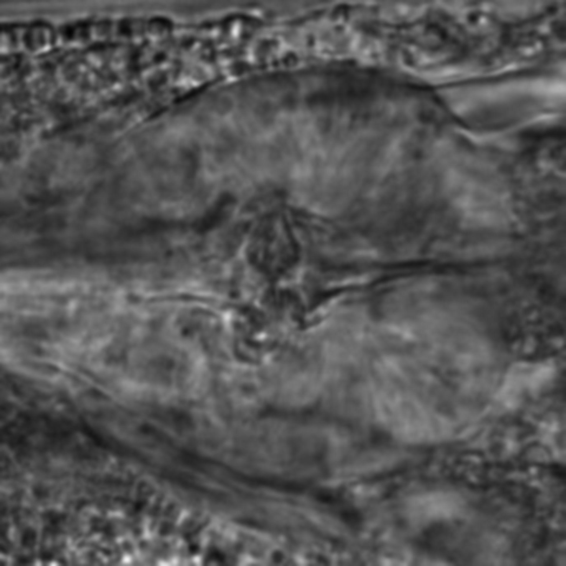 Caenorhabditis elegans - CIL:2797