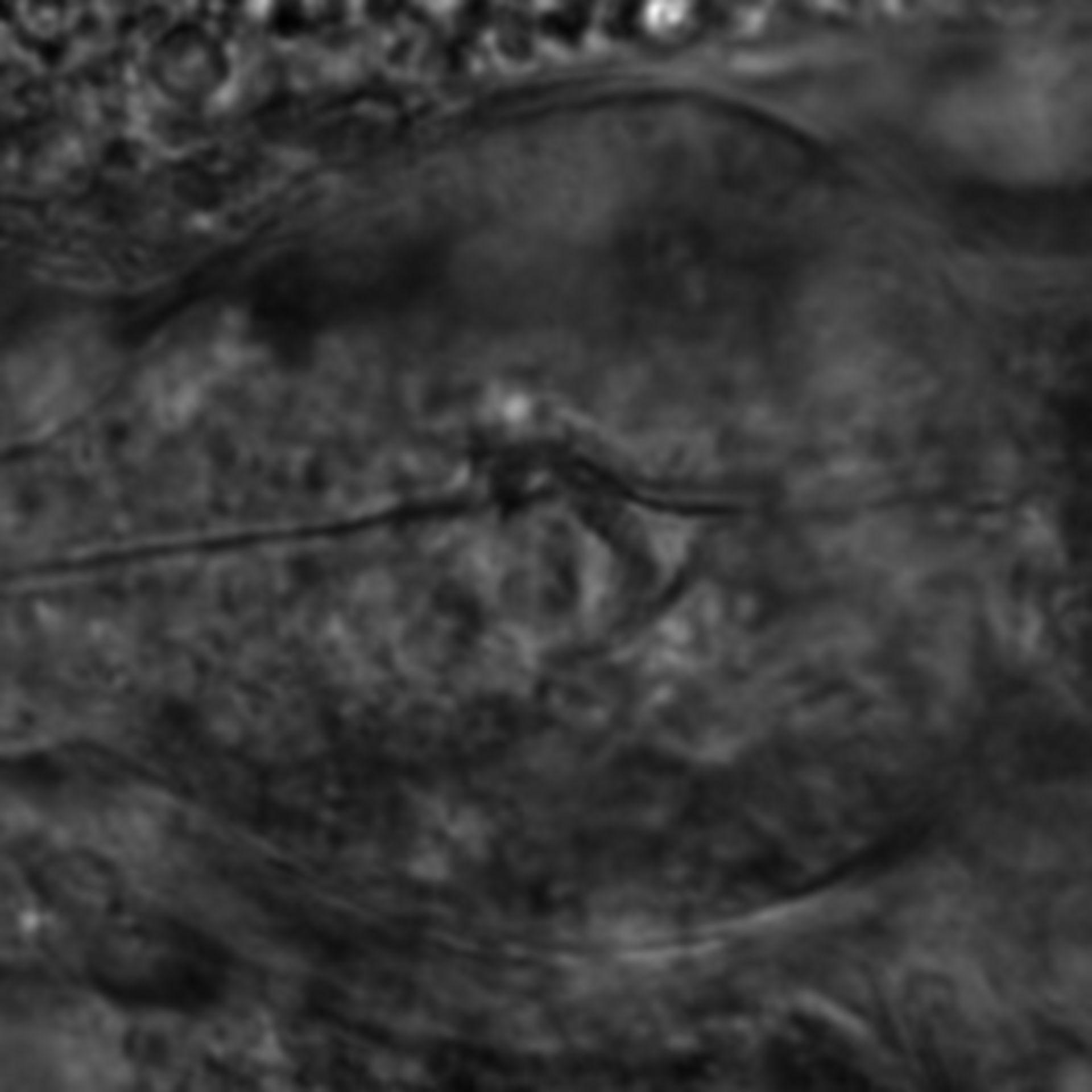 Caenorhabditis elegans - CIL:2765