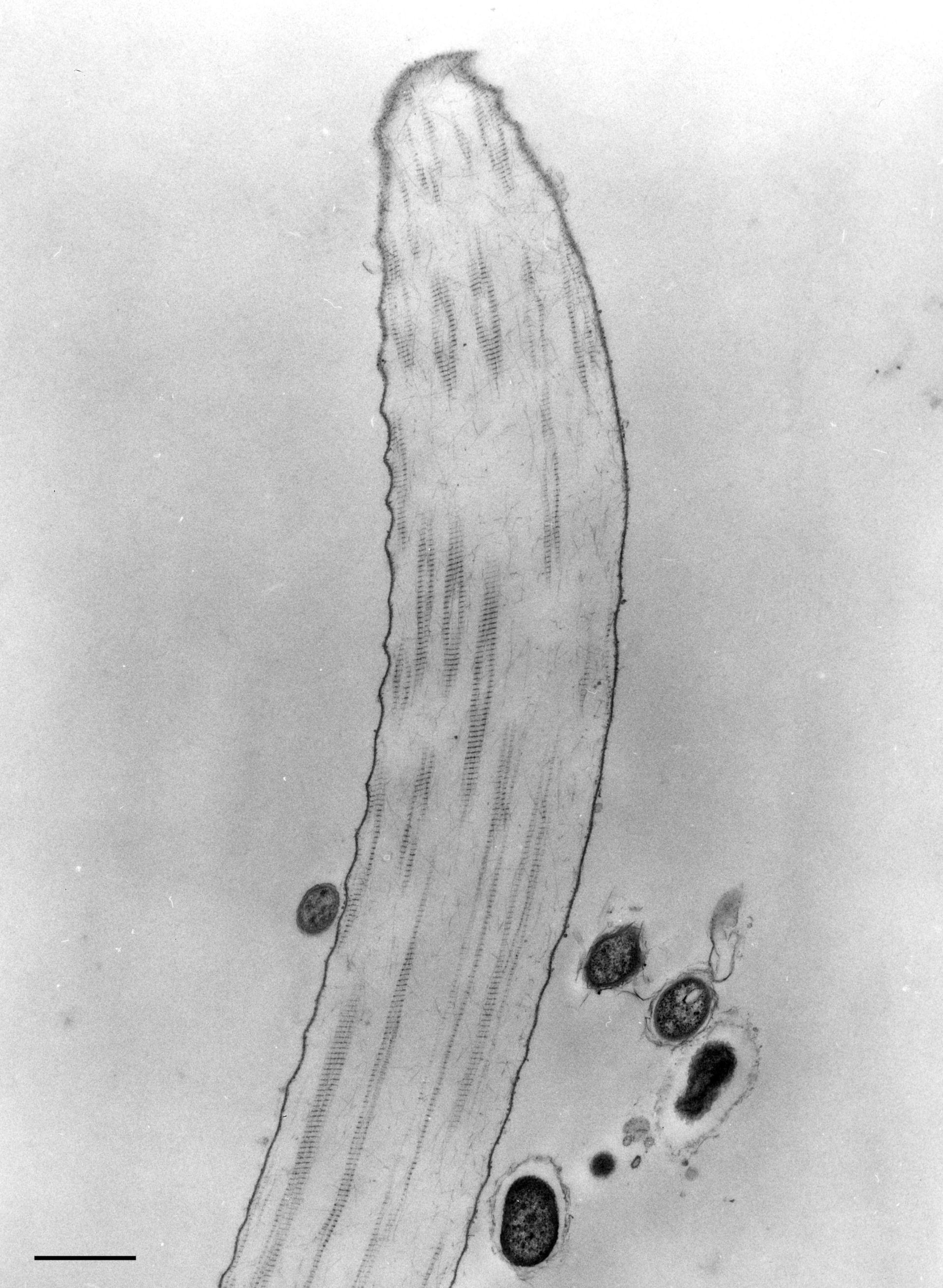 Opercularia coarctata (Extracellular matrix) - CIL:9820