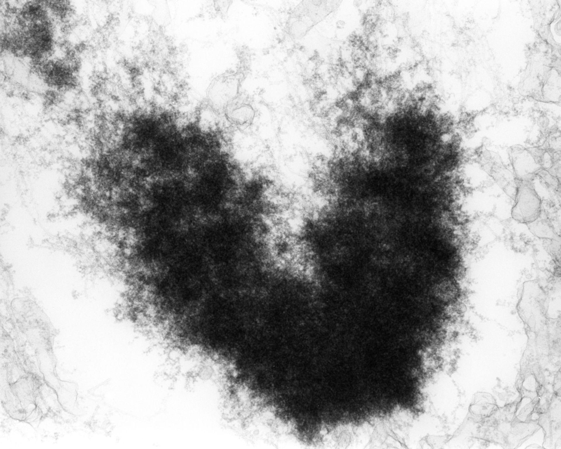Haemanthus katharinae (Nuclear chromosome) - CIL:11850