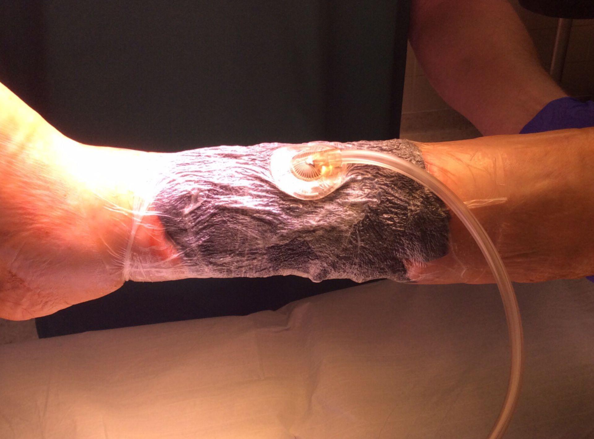 Úlcera del miembro inferior - terapia de herida con presión negativa