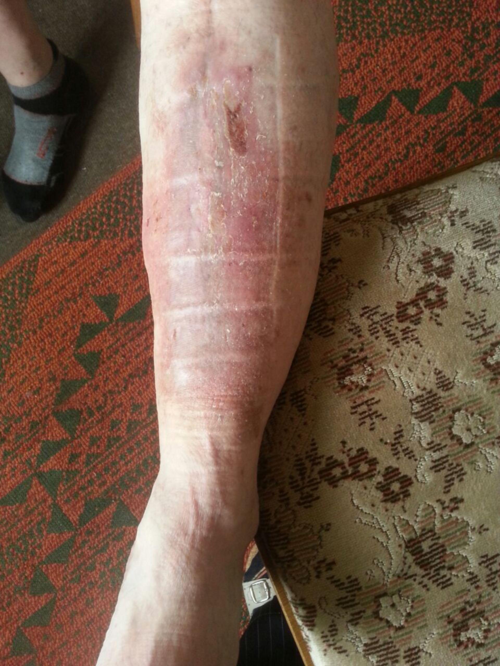 Úlcera de la pierna -20 años abierta: resultado ambulatorio (21)