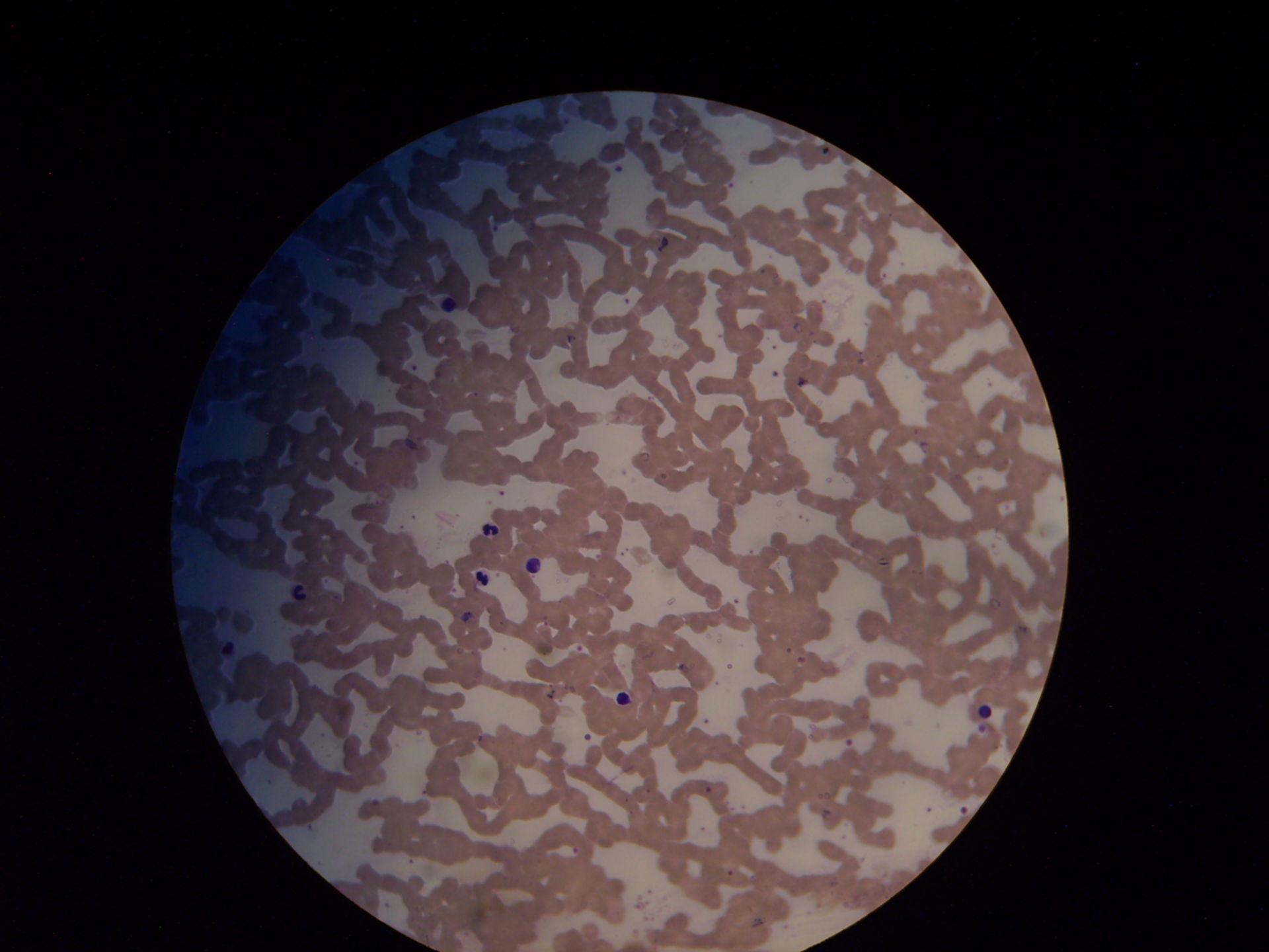 Malaria Blutausstrich