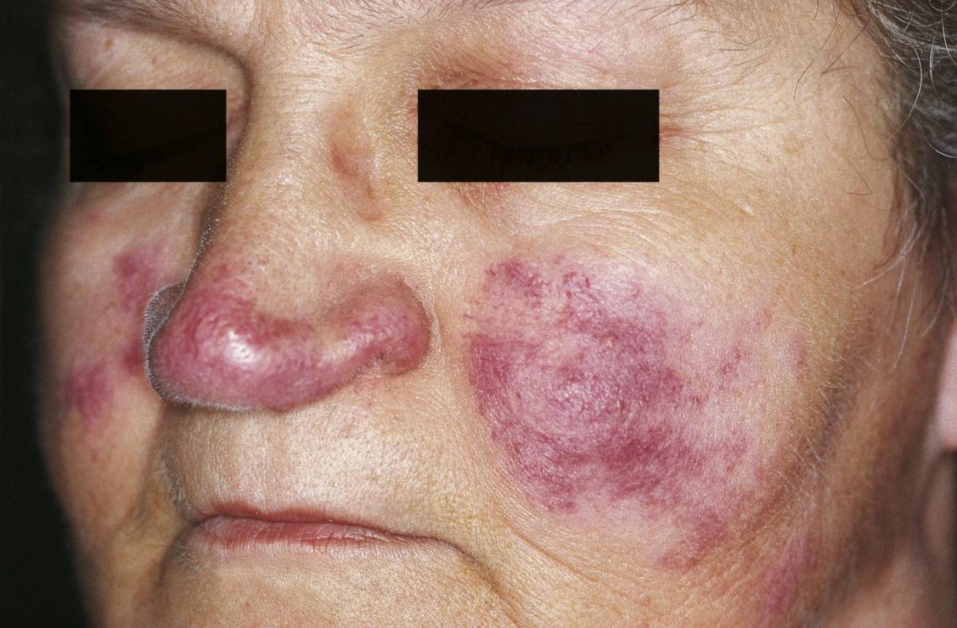 Hautläsionen bei Sarkoidose (Lupus pernio)