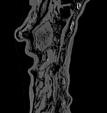 Anhang: Röntgenbild von Magen und Darm des Iceman. © EURAC/A. Zink