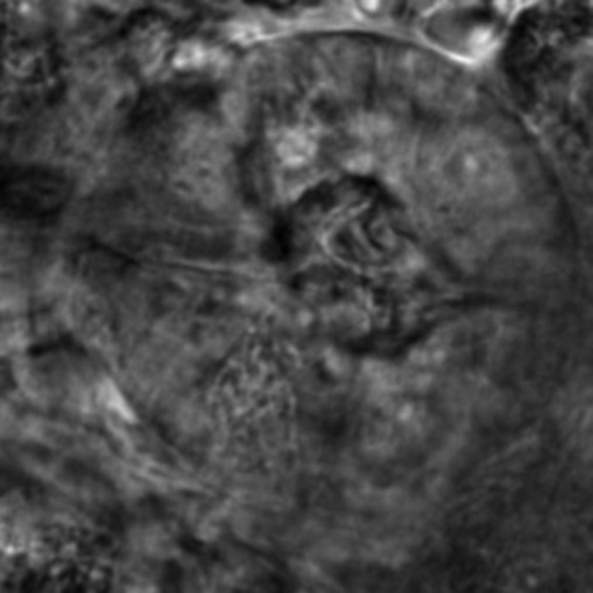 Caenorhabditis elegans - CIL:2629