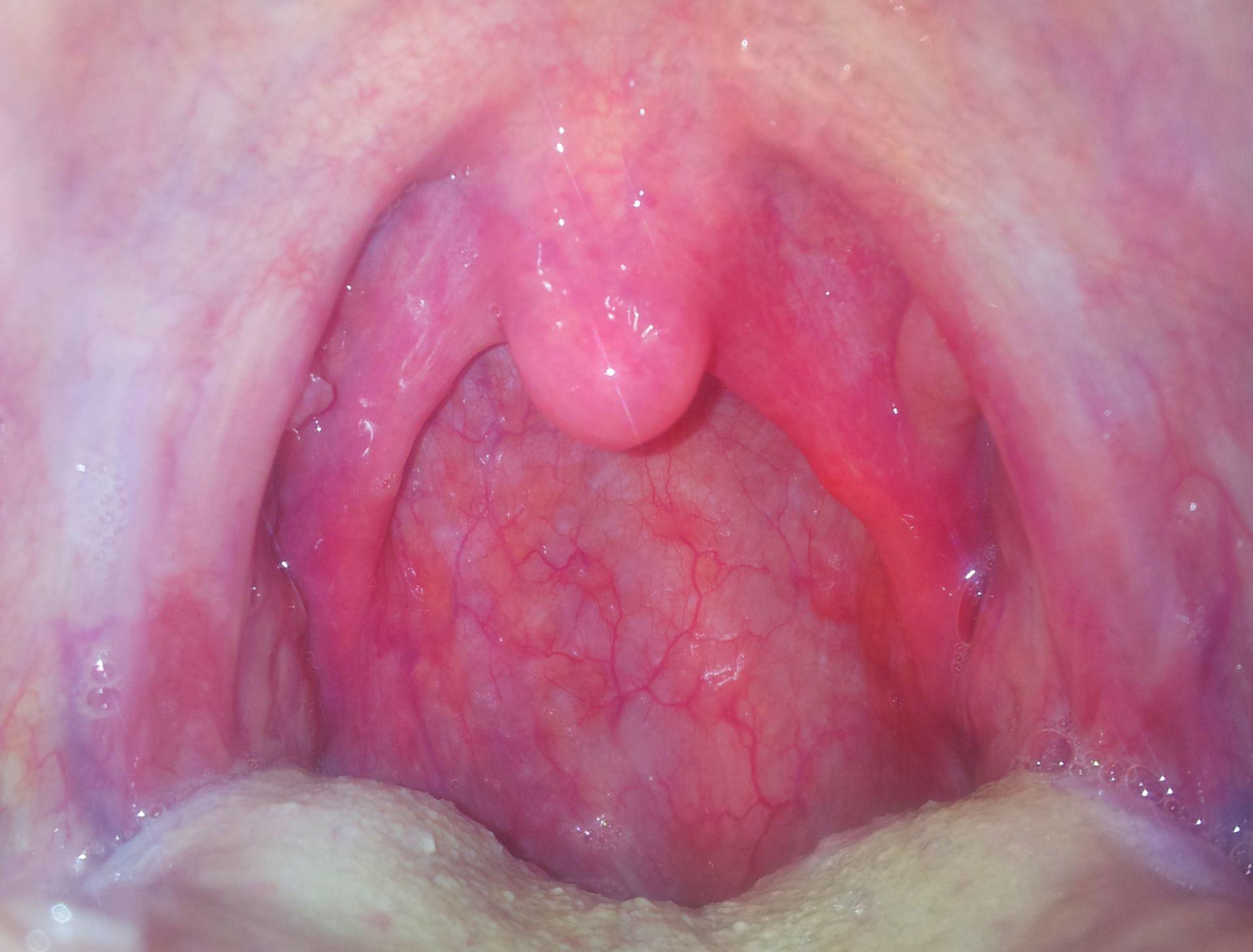 Faringitis unilateral