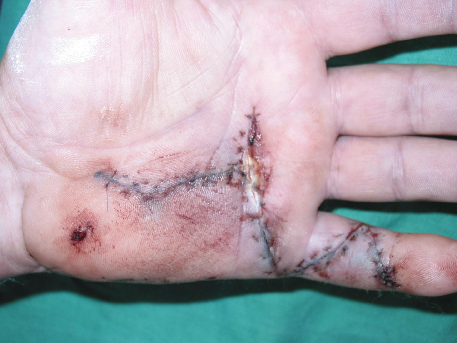 Dupuytren D 5 links-1 Woche postoperativ