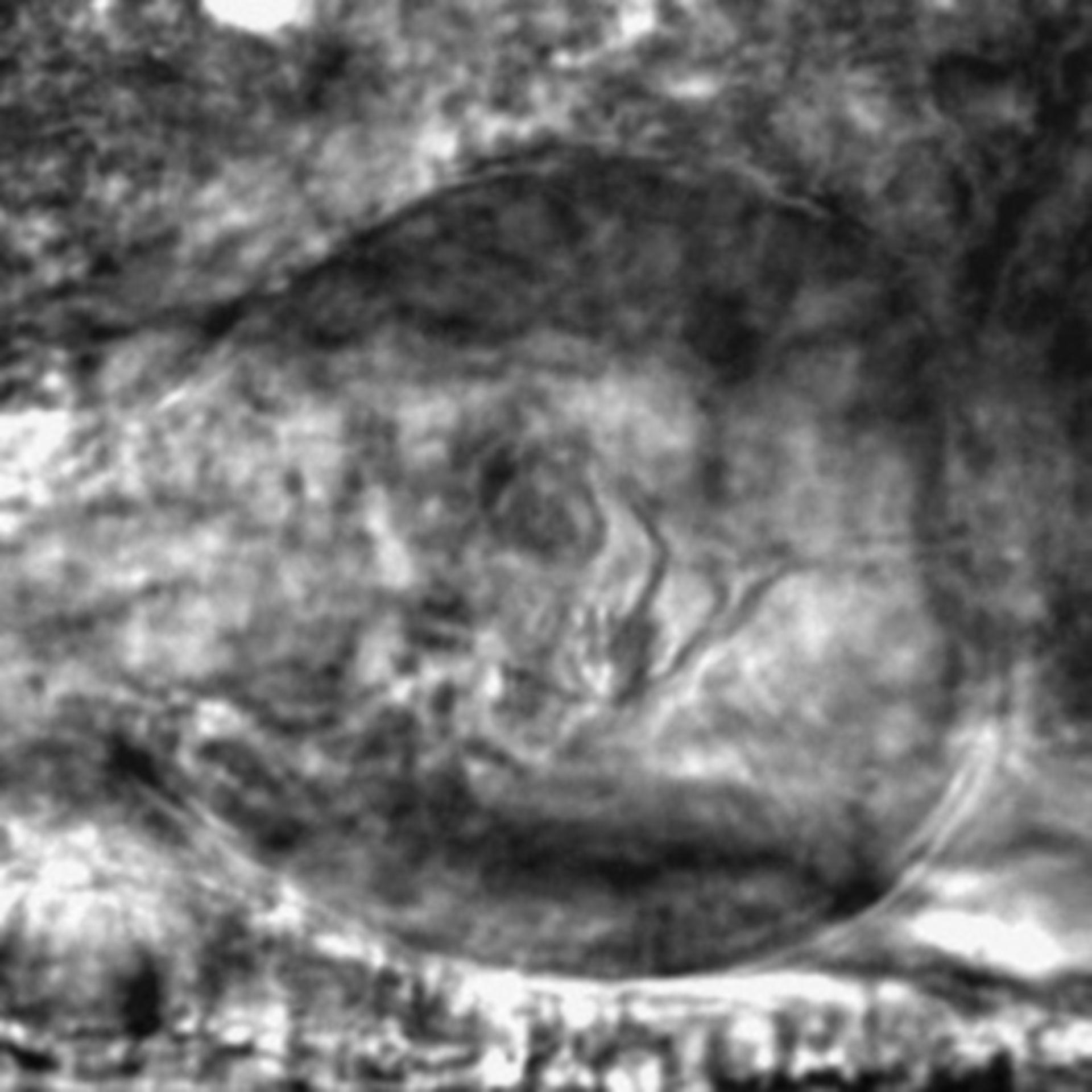 Caenorhabditis elegans - CIL:2711