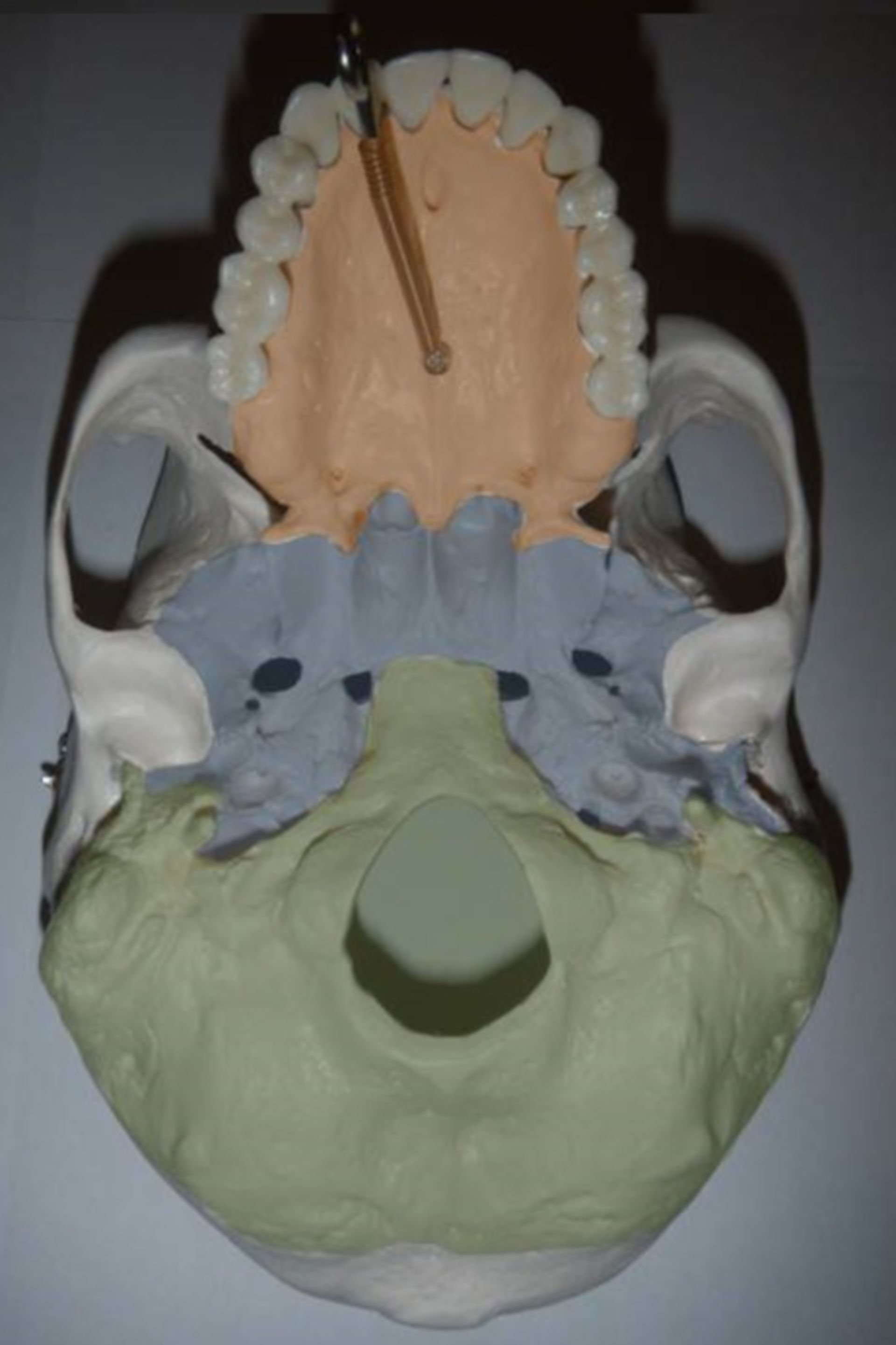 Basis cranii externa - Base of the skull from outside