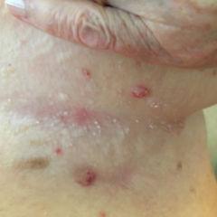 Pofalte pilz Hautpilz: Schnelleinsatz