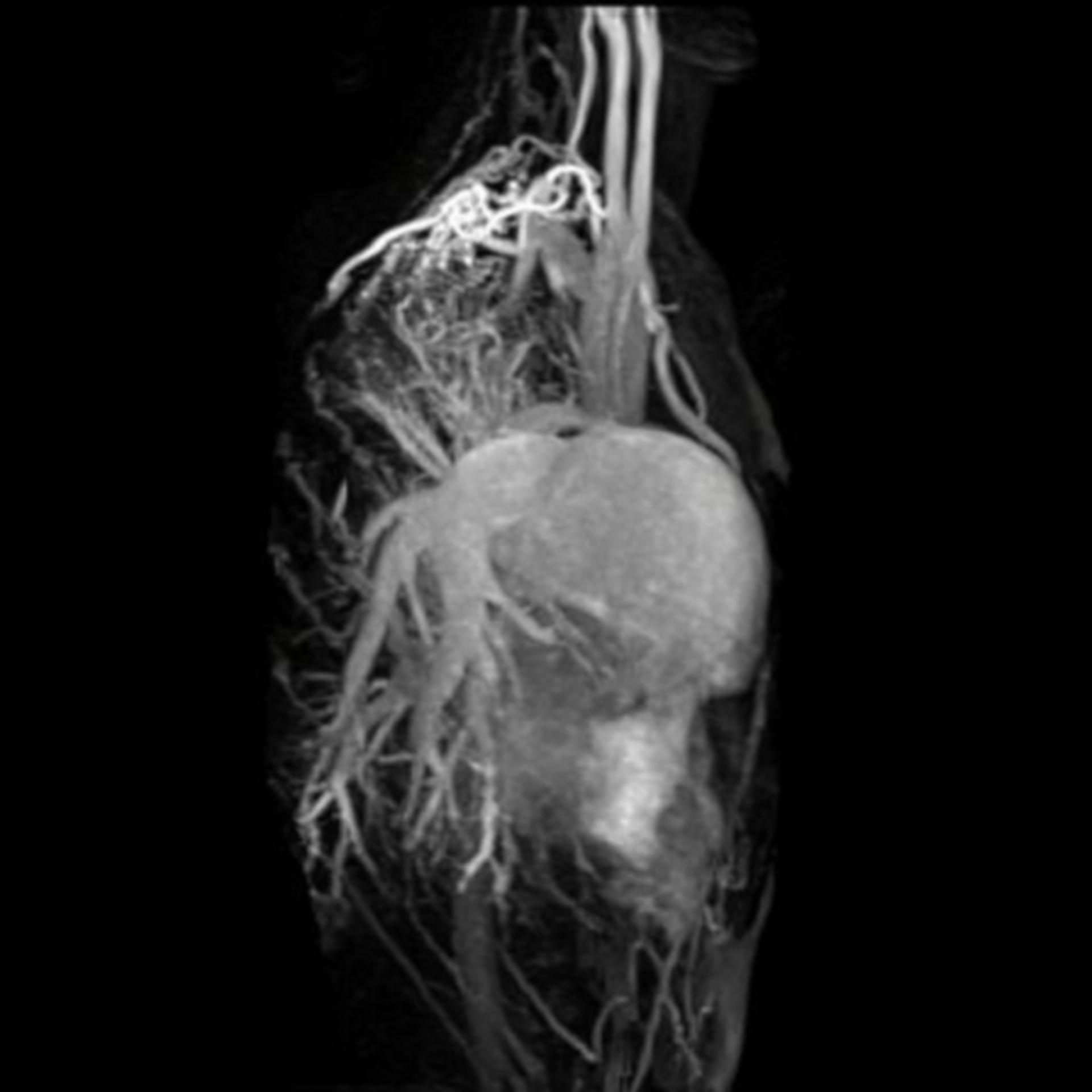 Resonancia magnética del corazón
